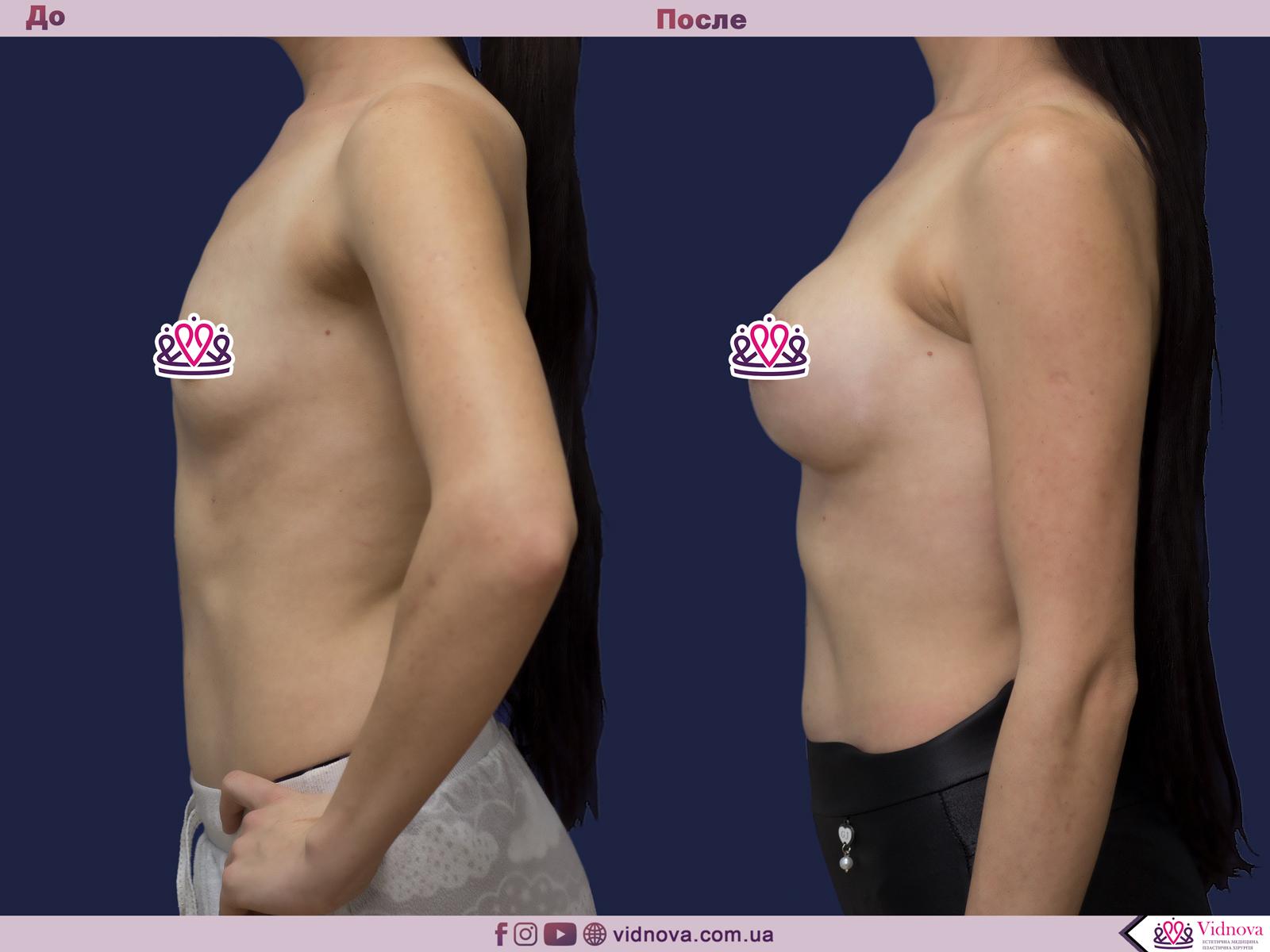 Пластика груди: результаты до и после - Пример №20-2 - Светлана Работенко