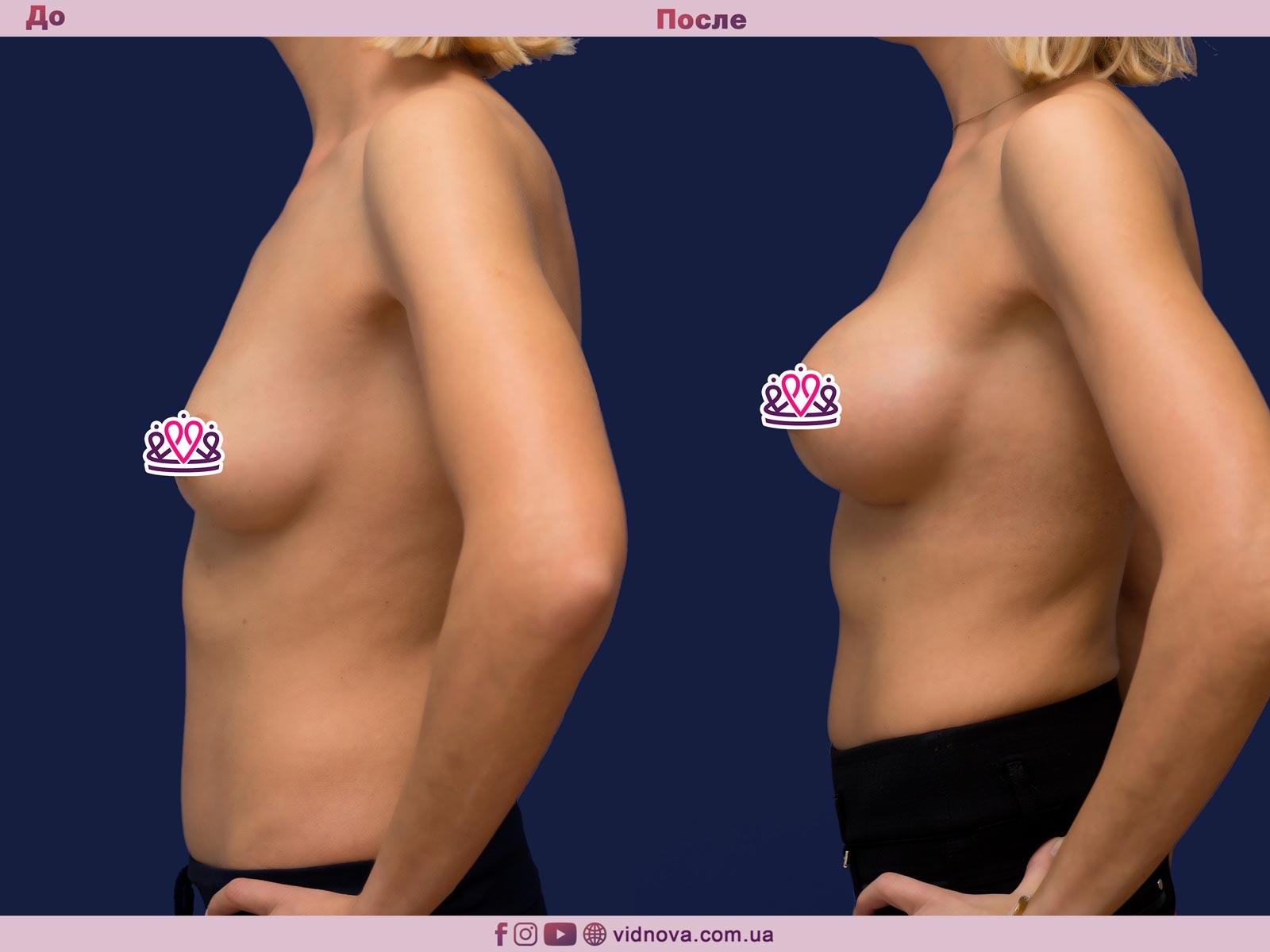 Пластика груди: результаты до и после - Пример №17-2 - Светлана Работенко