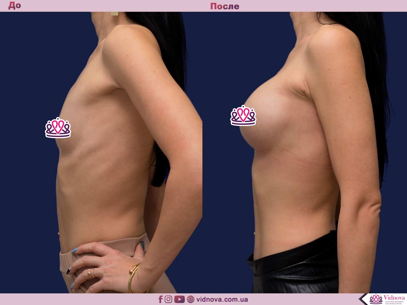 Пластика груди: результаты до и после - Пример №16-2 - Светлана Работенко