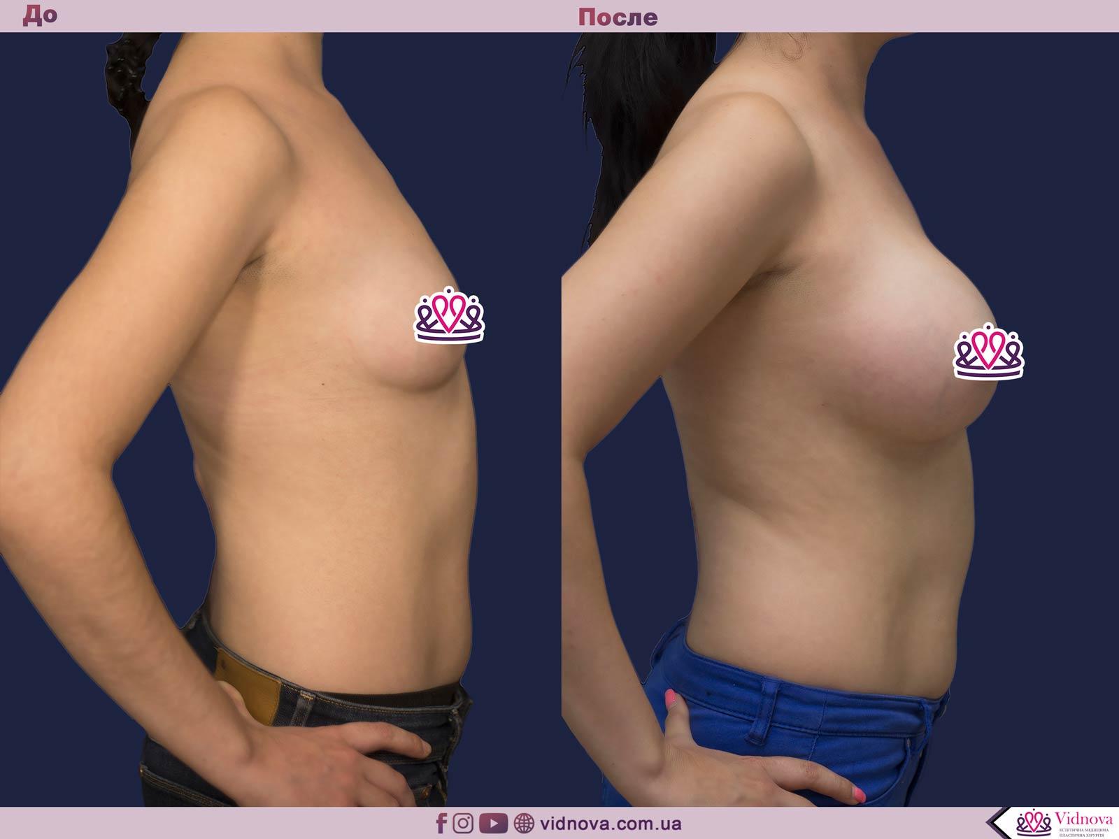 Пластика груди: результаты до и после - Пример №18-2 - Светлана Работенко