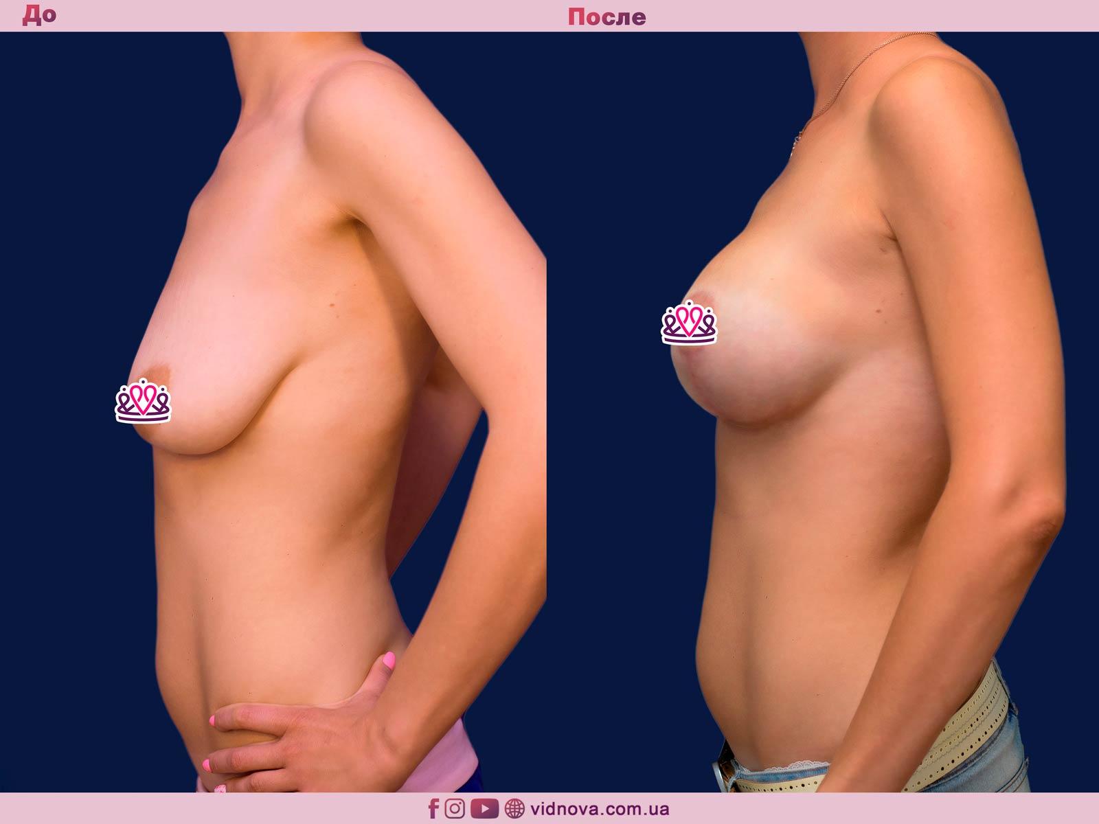 Пластика груди: результаты до и после - Пример №21-2 - Светлана Работенко