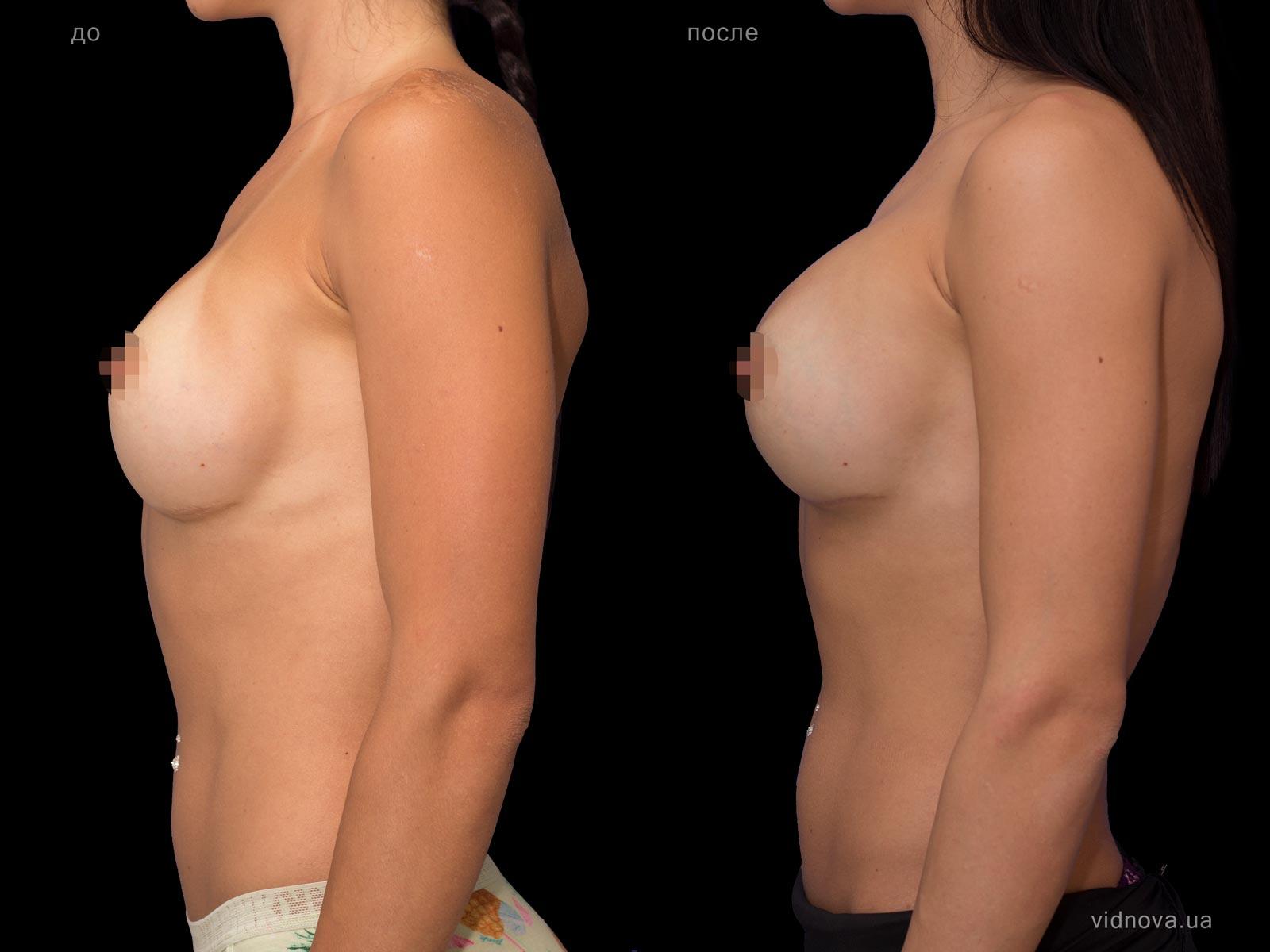 Пластика груди: результаты до и после - Пример №72-2 - Светлана Работенко