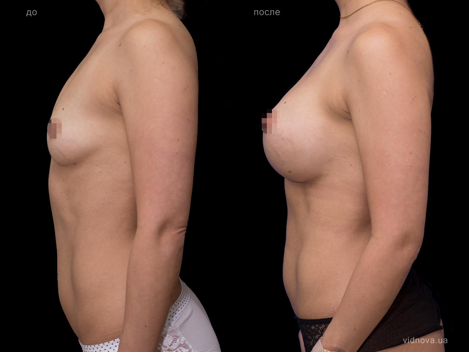 Пластика груди: результаты до и после - Пример №66-2 - Светлана Работенко