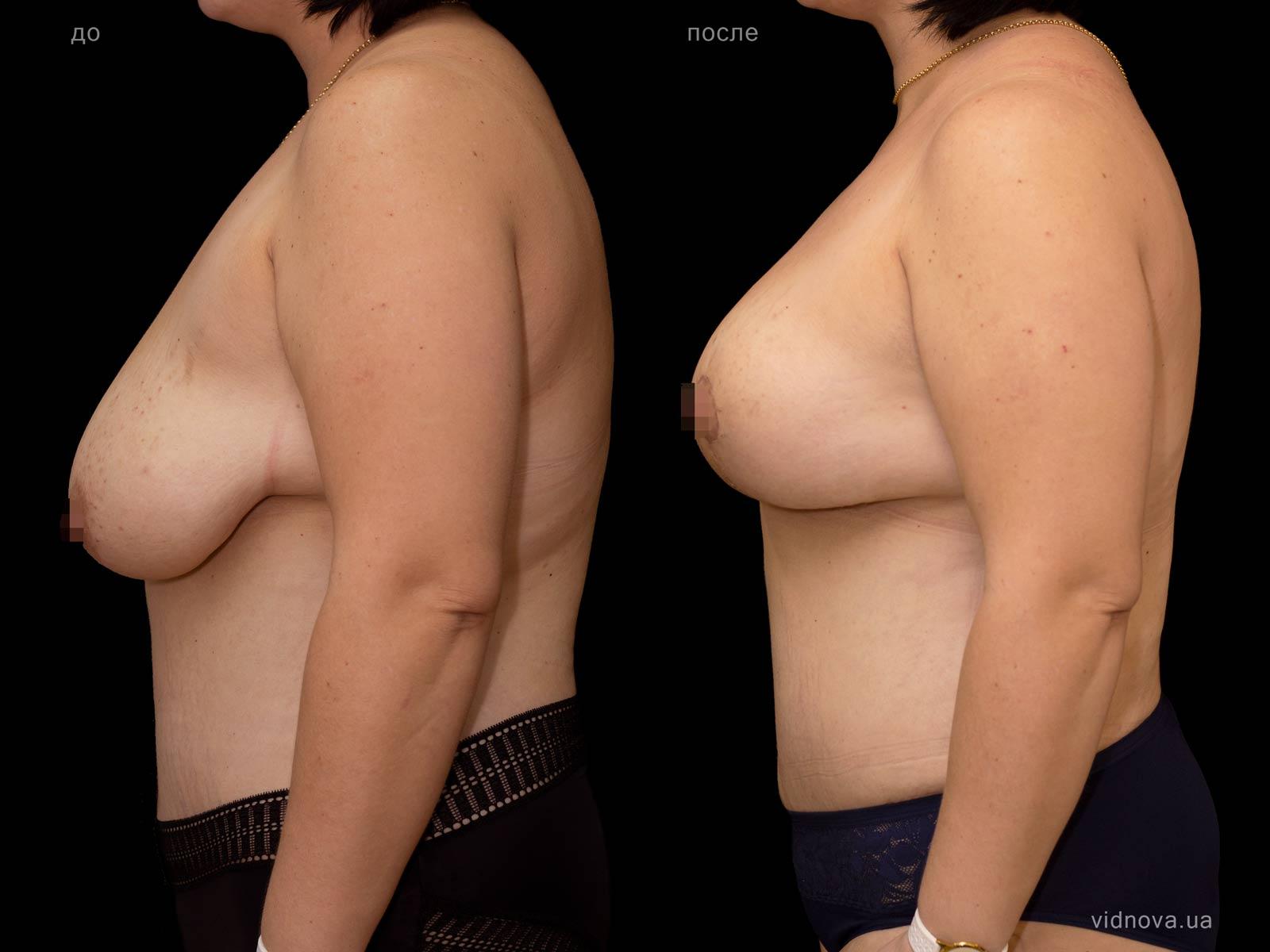 Пластика груди: результаты до и после - Пример №77-2 - Светлана Работенко