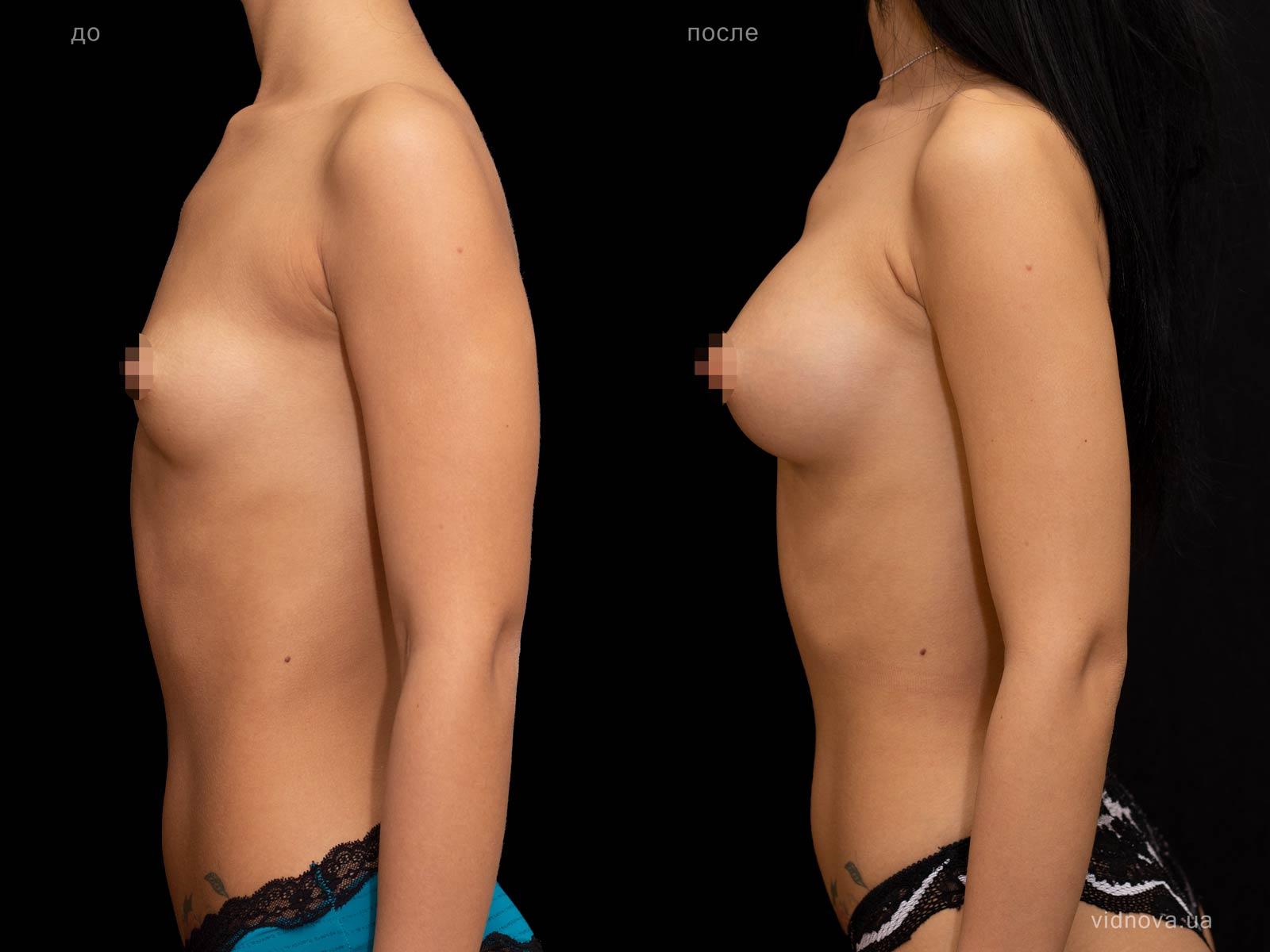 Пластика груди: результаты до и после - Пример №76-2 - Светлана Работенко