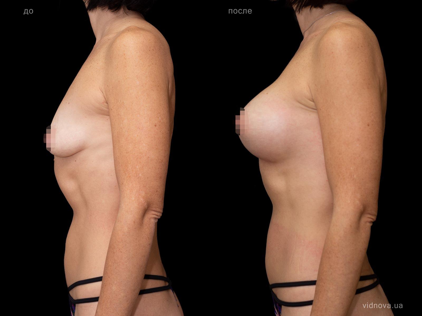Пластика груди: результаты до и после - Пример №67-2 - Светлана Работенко