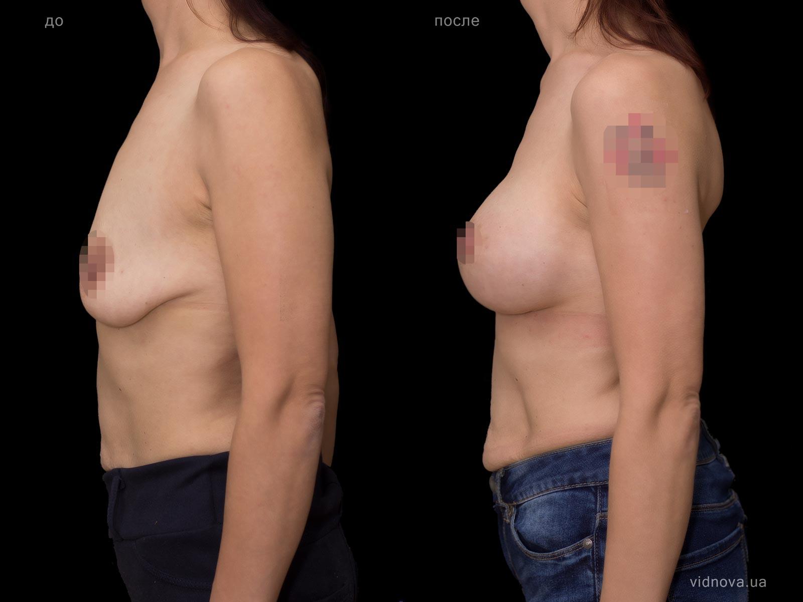 Пластика груди: результаты до и после - Пример №80-2 - Светлана Работенко