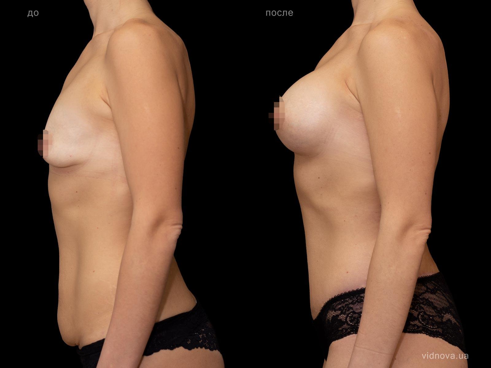 Пластика груди: результаты до и после - Пример №97-3 - Светлана Работенко