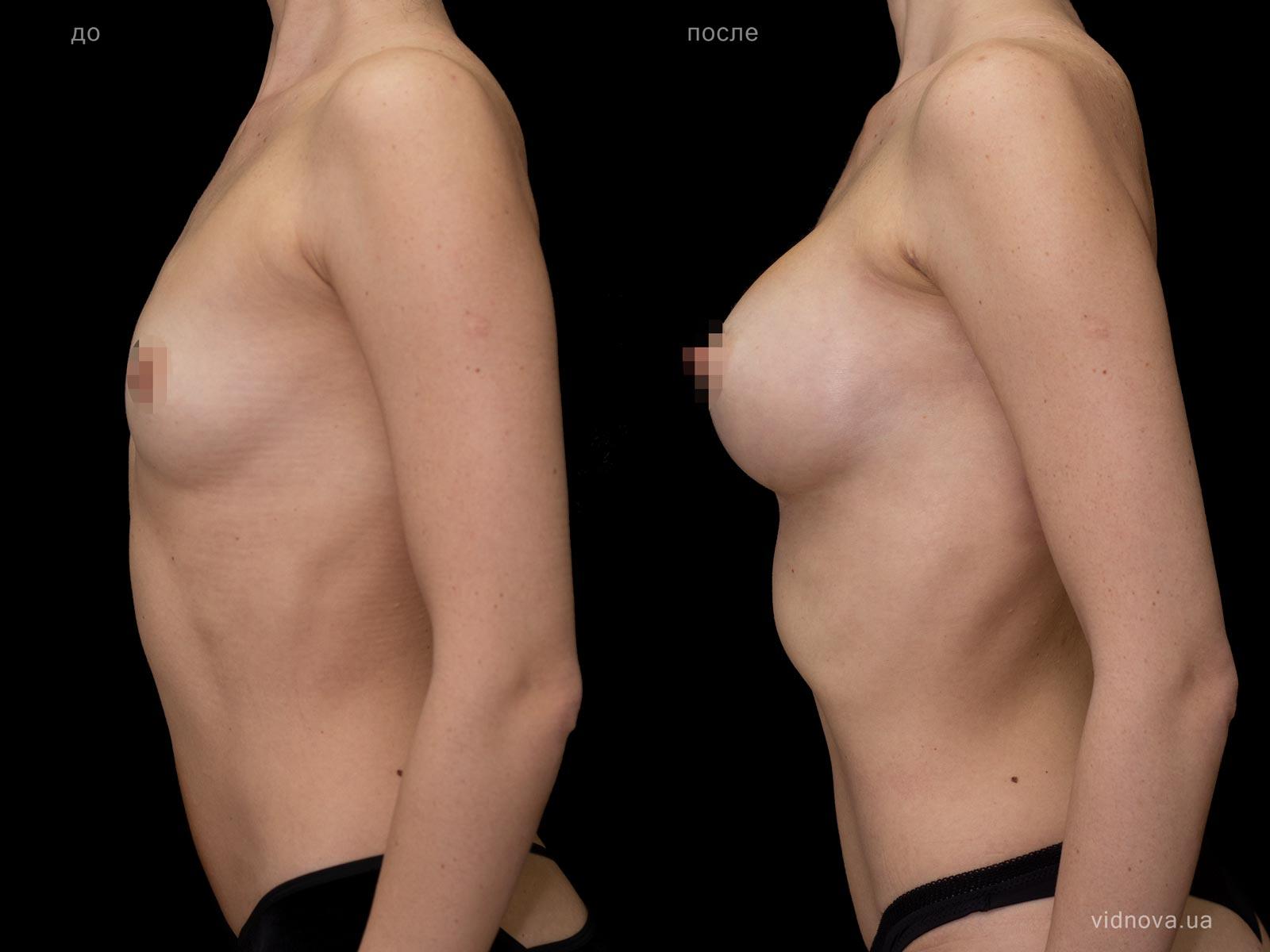 Пластика груди: результаты до и после - Пример №79-2 - Светлана Работенко