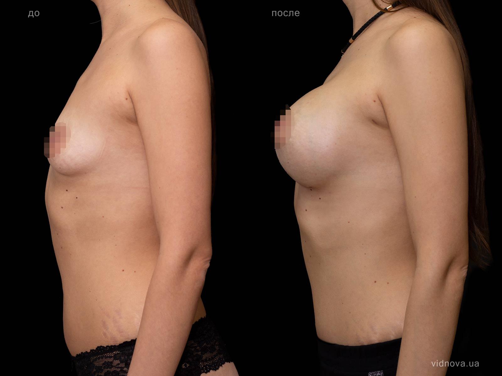 Пластика груди: результаты до и после - Пример №92-2 - Светлана Работенко