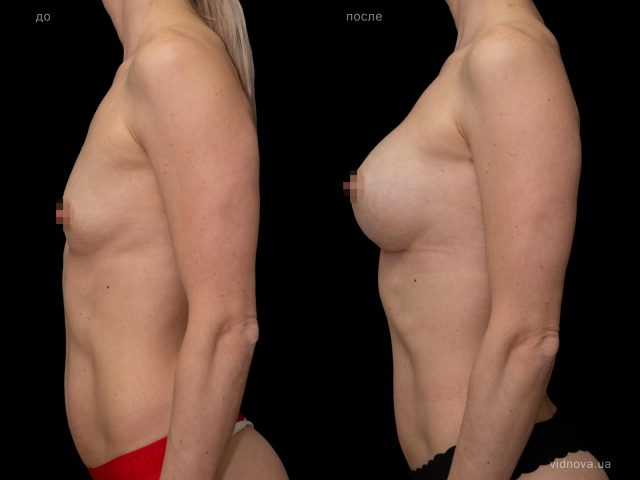Увеличение груди: подготовка к операции 3 2019 05 15T094416.475 640x480