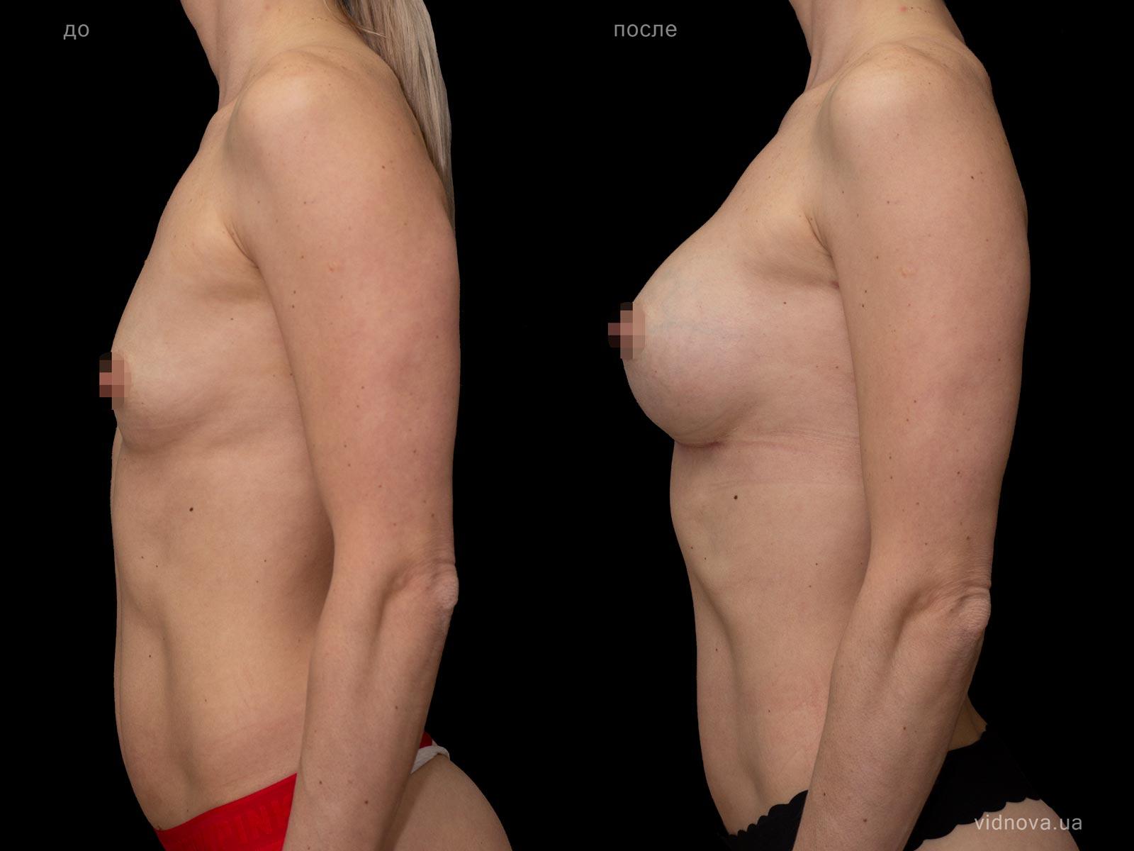Пластика груди: результаты до и после - Пример №81-2 - Светлана Работенко