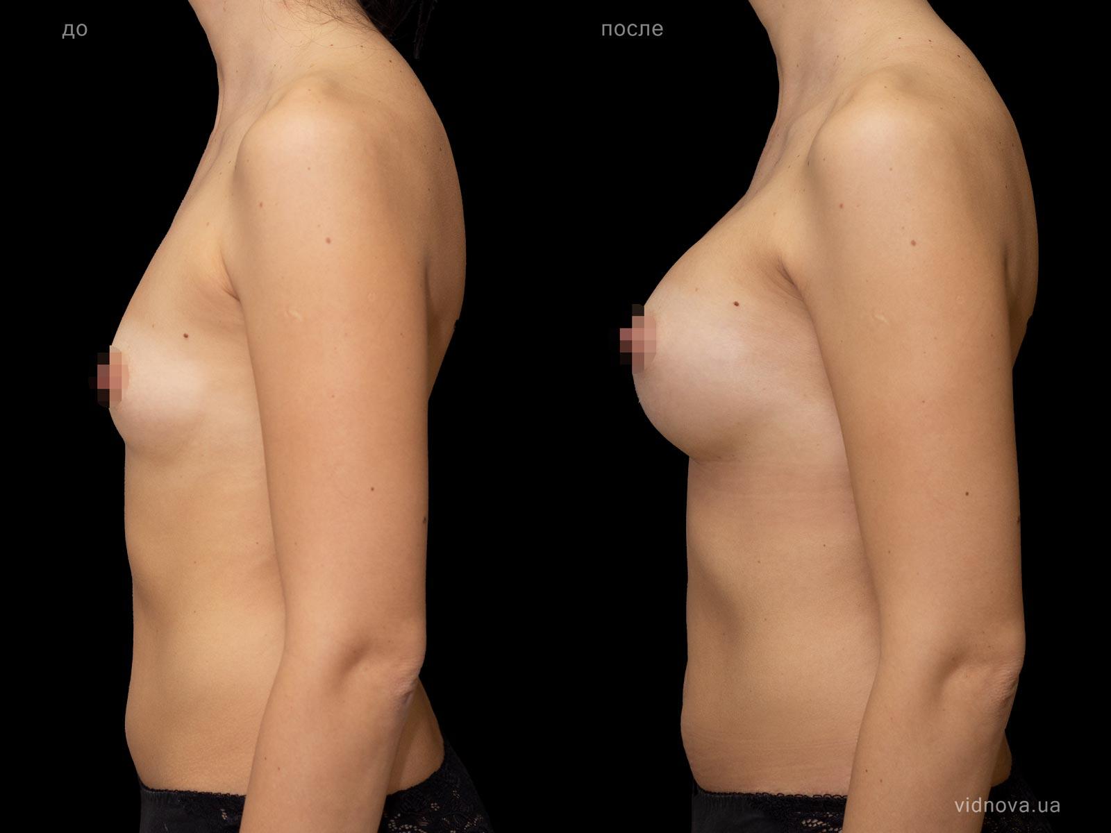 Пластика груди: результаты до и после - Пример №82-2 - Светлана Работенко