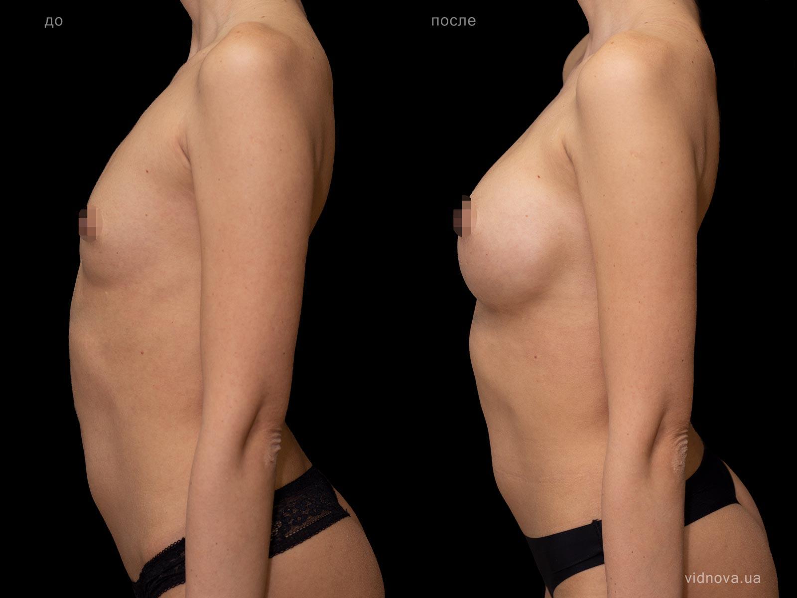 Пластика груди: результаты до и после - Пример №91-2 - Светлана Работенко
