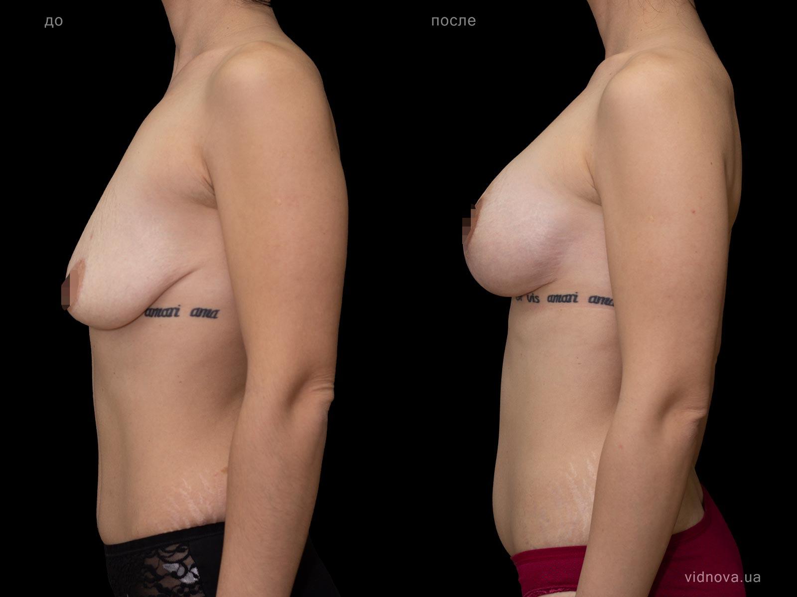 Пластика груди: результаты до и после - Пример №84-2 - Светлана Работенко
