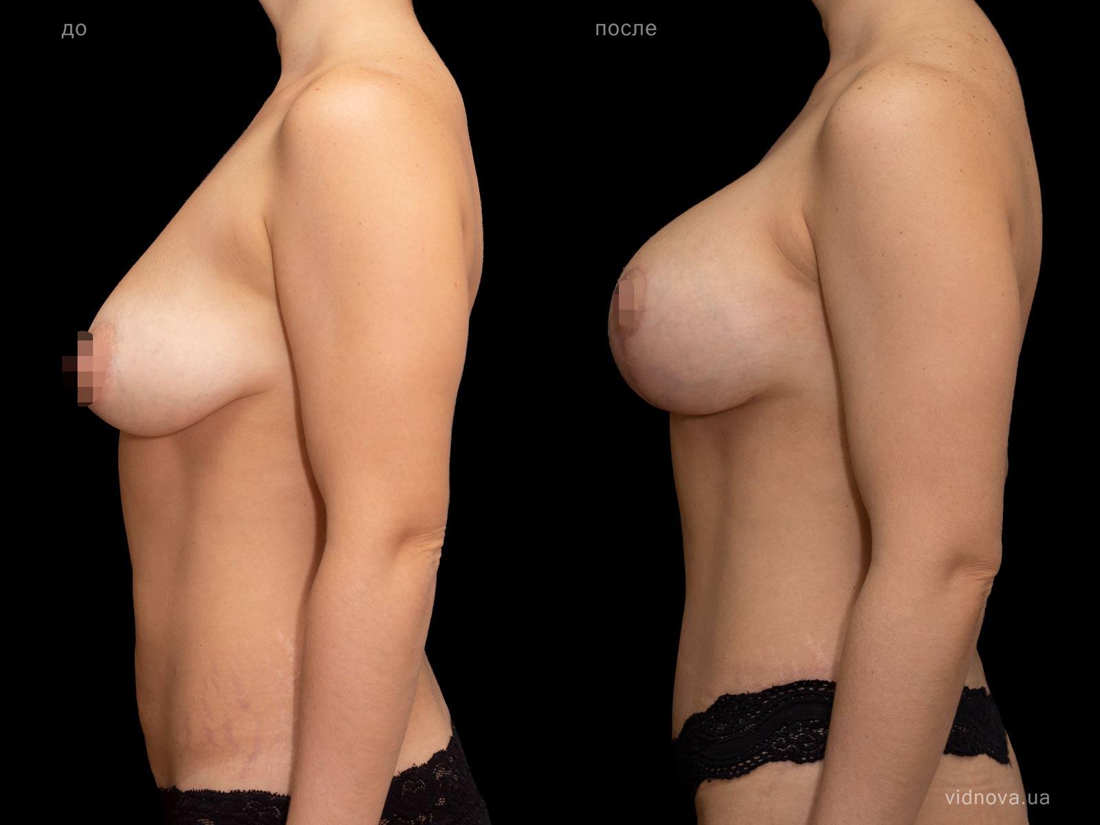 Пластика груди: результаты до и после - Пример №88-3 - Светлана Работенко