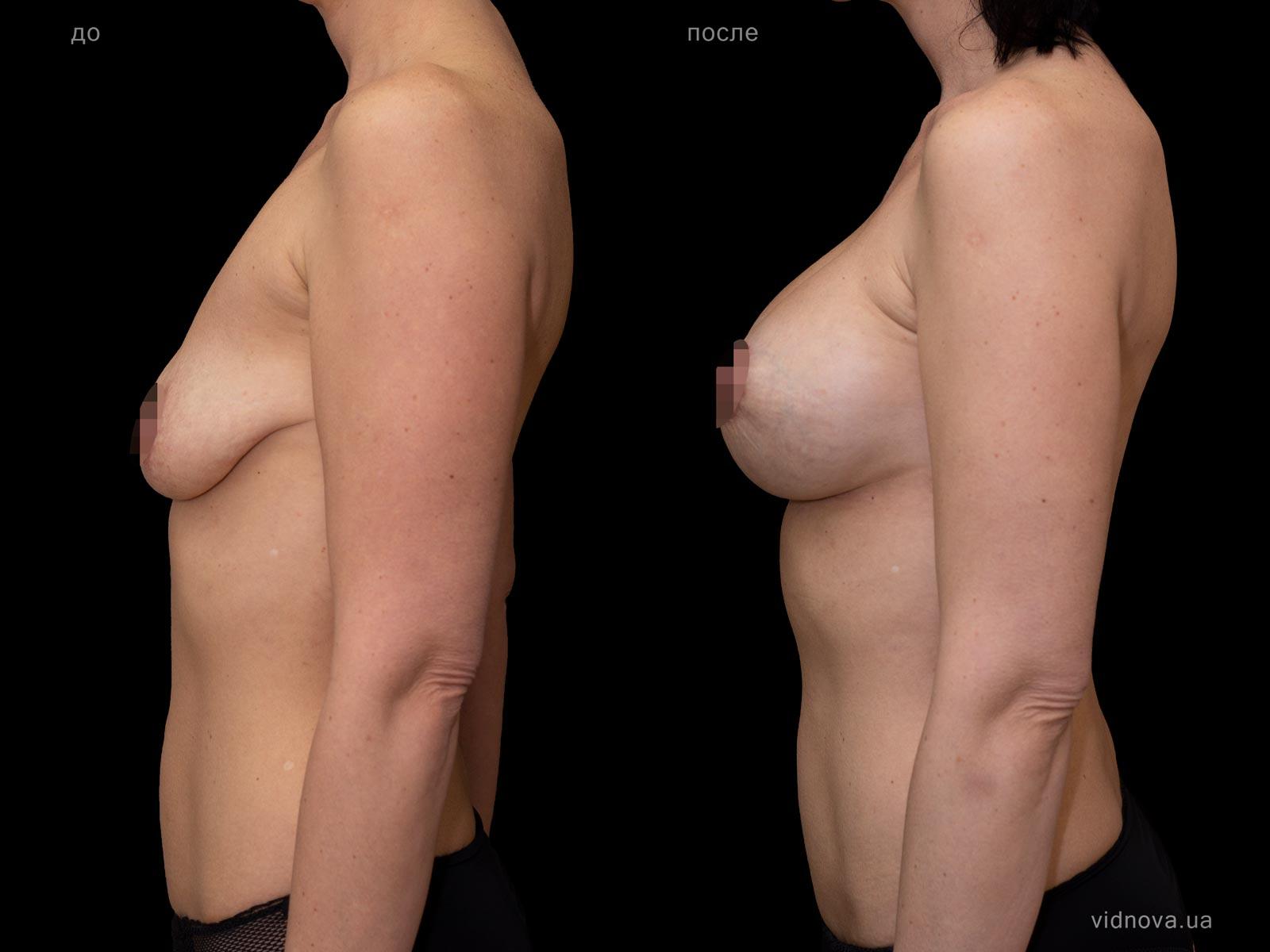 Пластика груди: результаты до и после - Пример №86-2 - Светлана Работенко