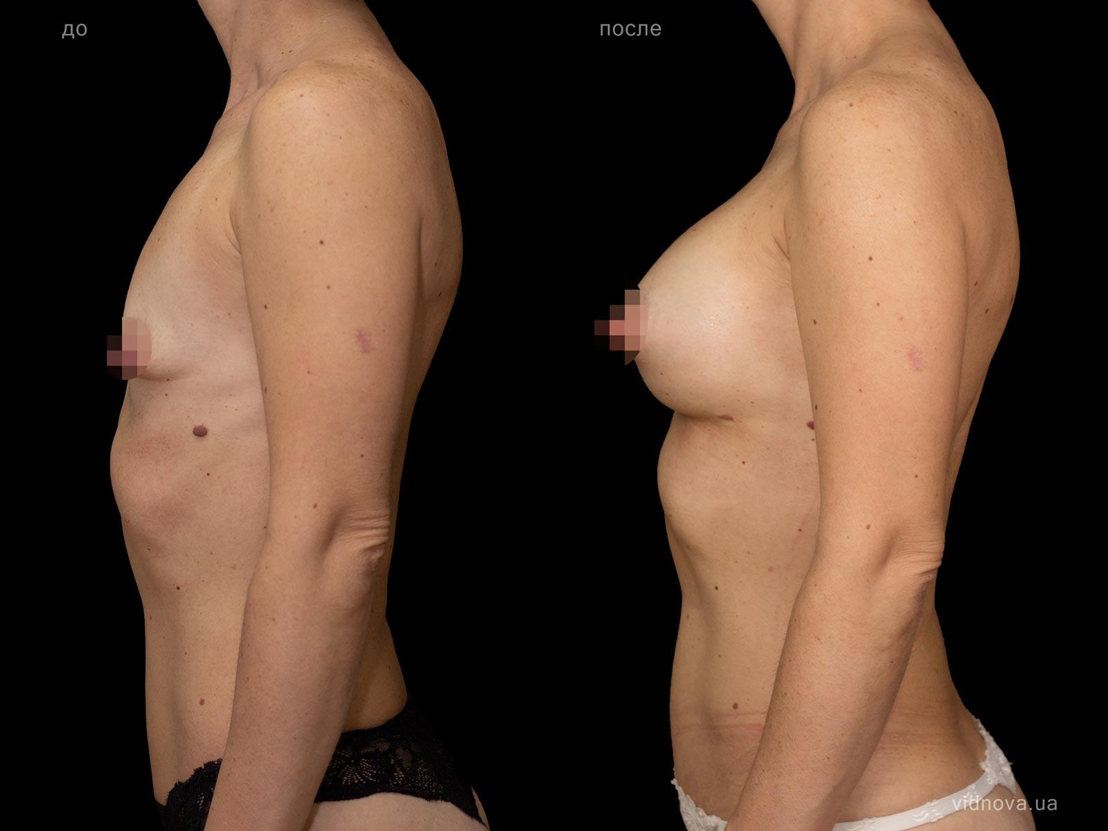 Пластика груди: результаты до и после - Пример №83-2 - Светлана Работенко