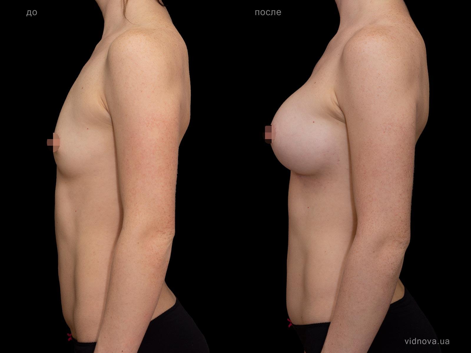 Пластика груди: результаты до и после - Пример №89-2 - Светлана Работенко