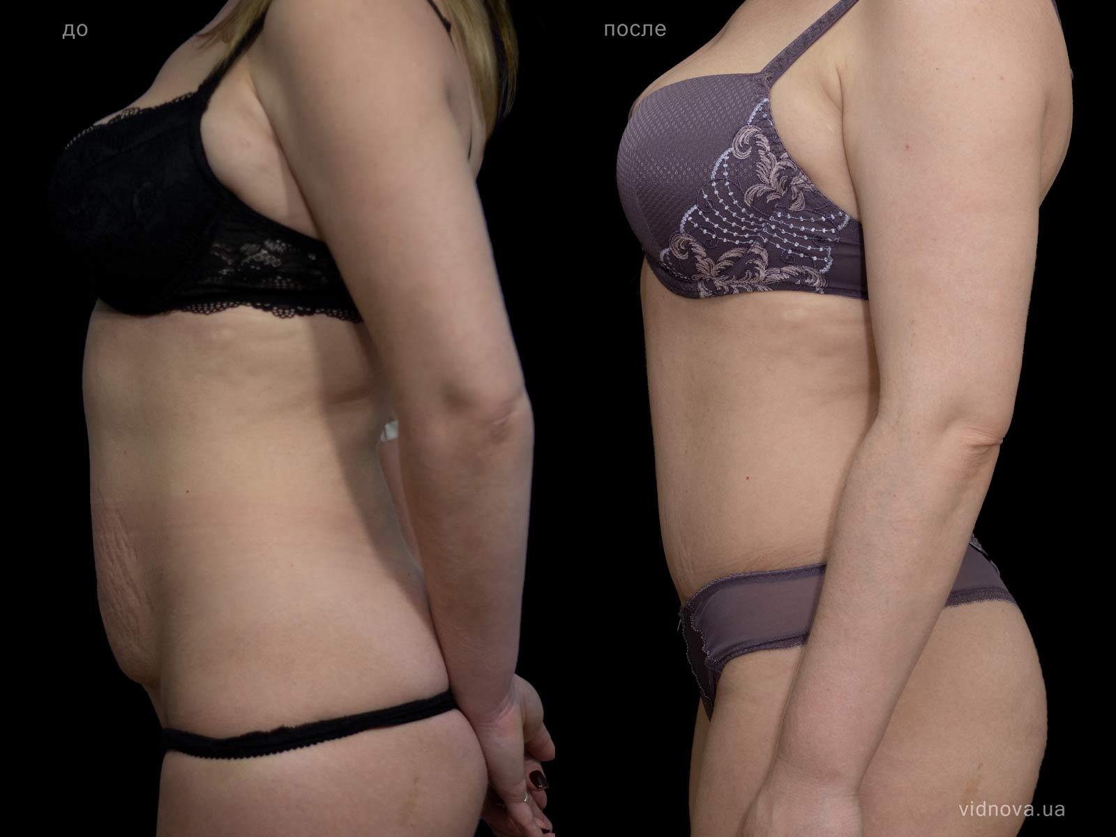 Пластика живота: результаты до и после - Пример №16-2 - Светлана Работенко