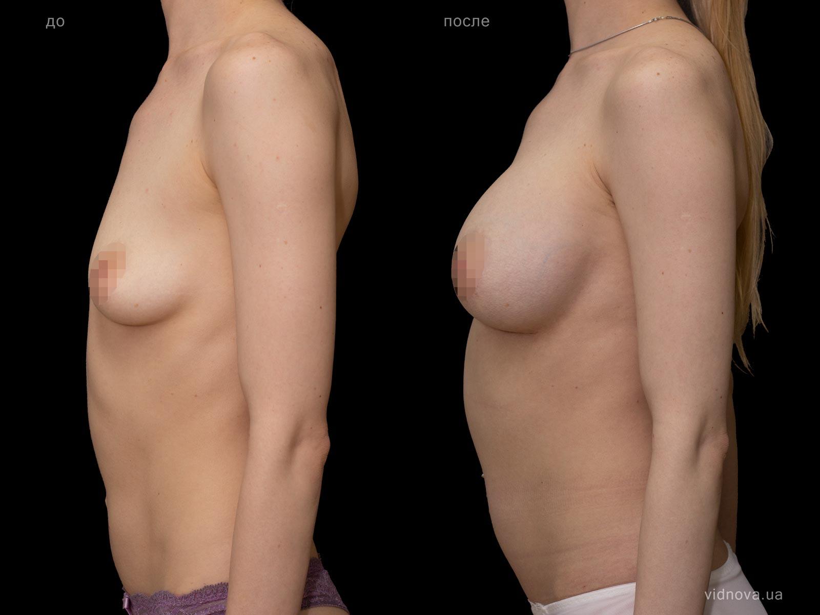 Пластика груди: результаты до и после - Пример №95-2 - Светлана Работенко