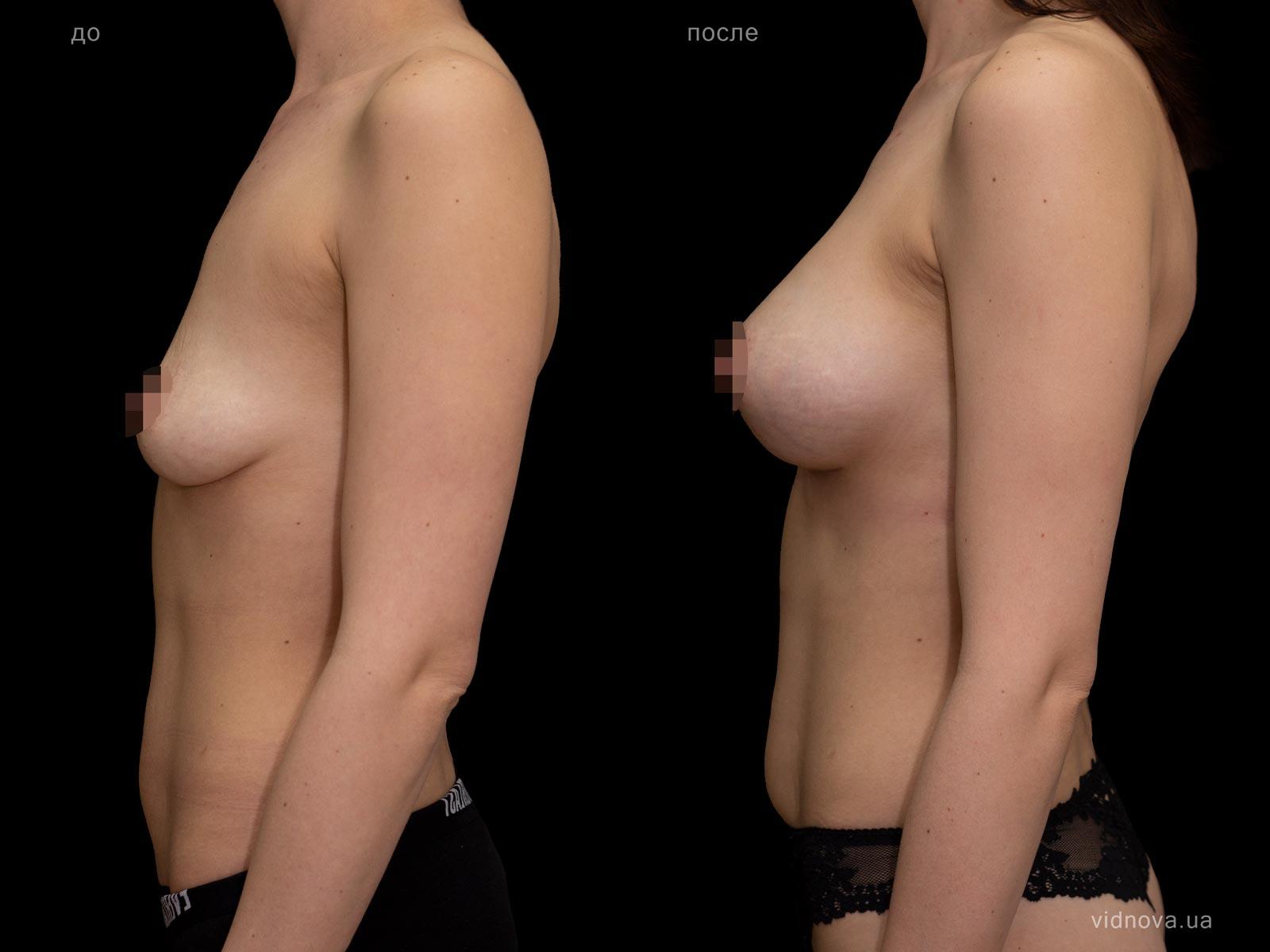Пластика груди: результаты до и после - Пример №93-2 - Светлана Работенко