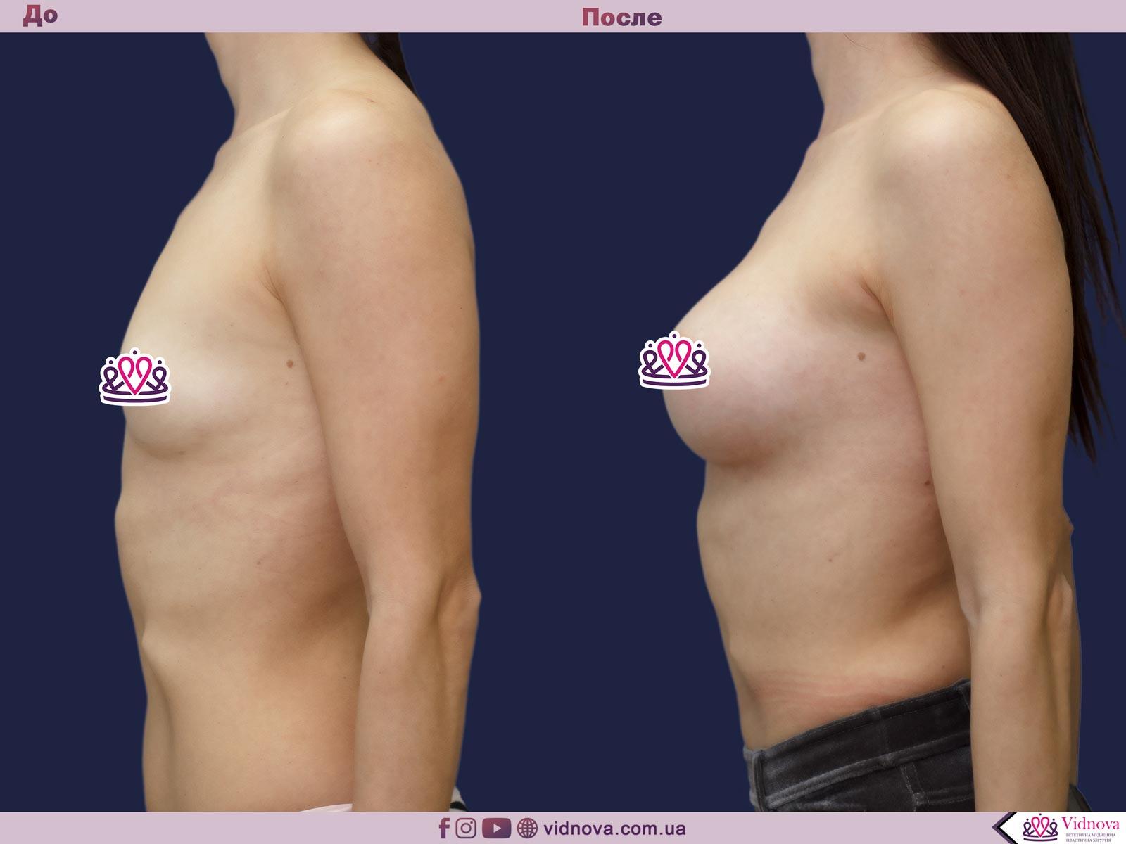 Пластика груди: результаты до и после - Пример №23-2 - Светлана Работенко