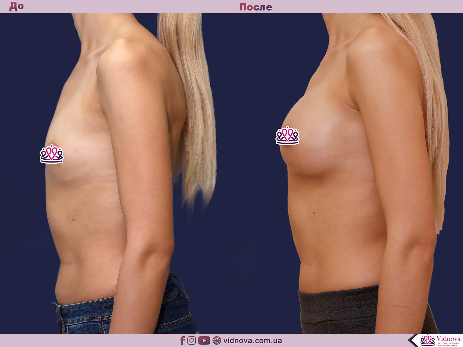 Пластика груди: результаты до и после - Пример №24-2 - Светлана Работенко