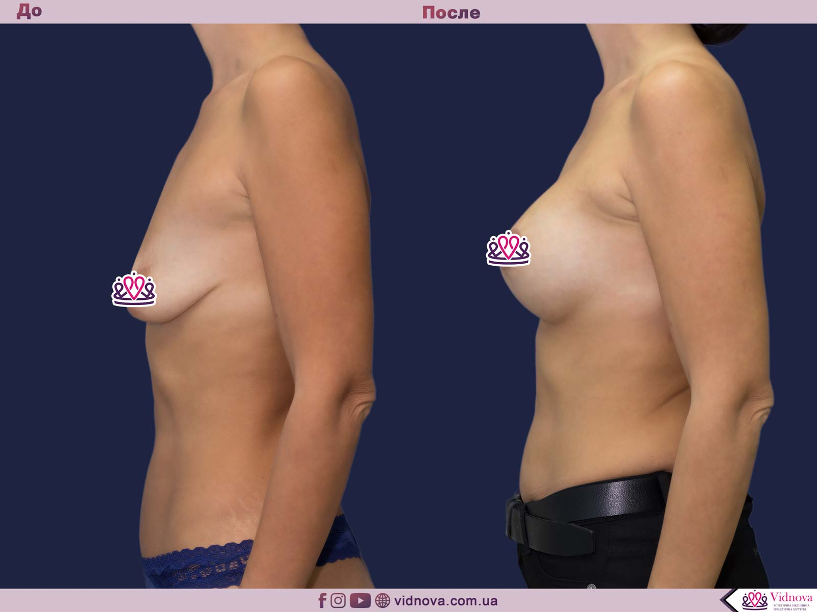Пластика груди: результаты до и после - Пример №25-2 - Светлана Работенко