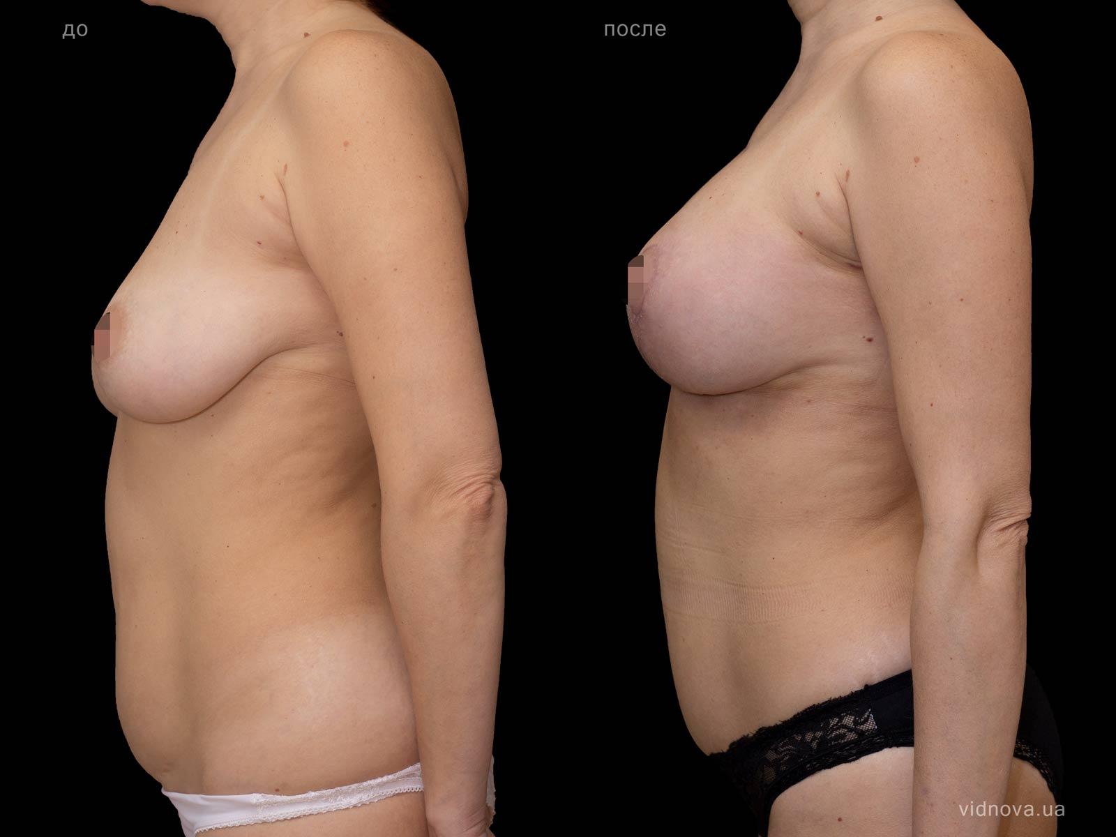 Пластика груди: результаты до и после - Пример №90-2 - Светлана Работенко