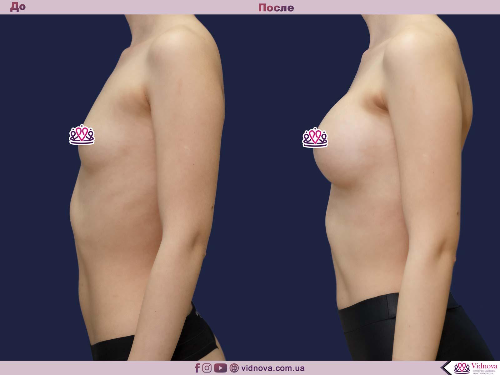 Пластика груди: результаты до и после - Пример №26-2 - Светлана Работенко