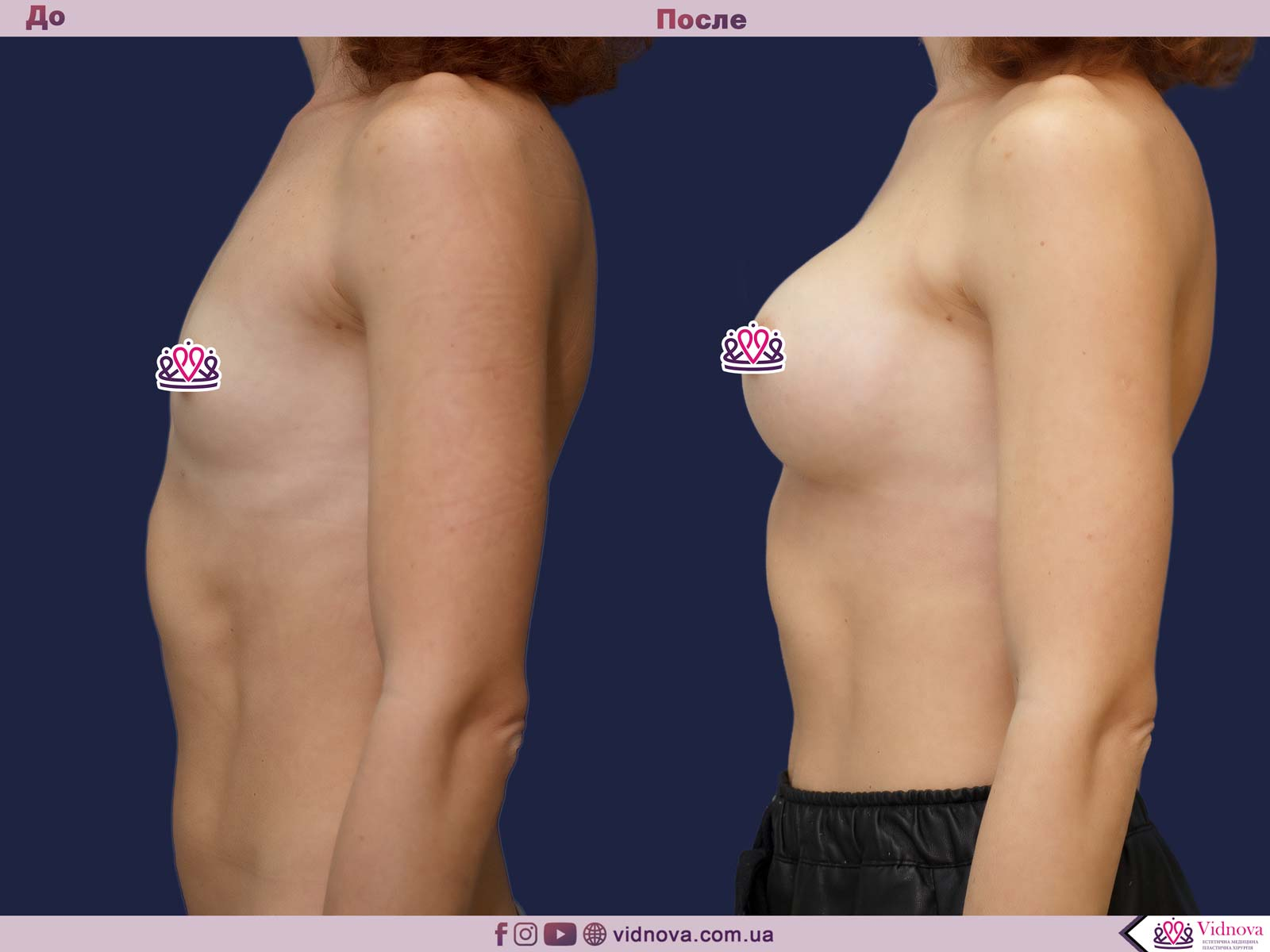 Пластика груди: результаты до и после - Пример №28-2 - Светлана Работенко