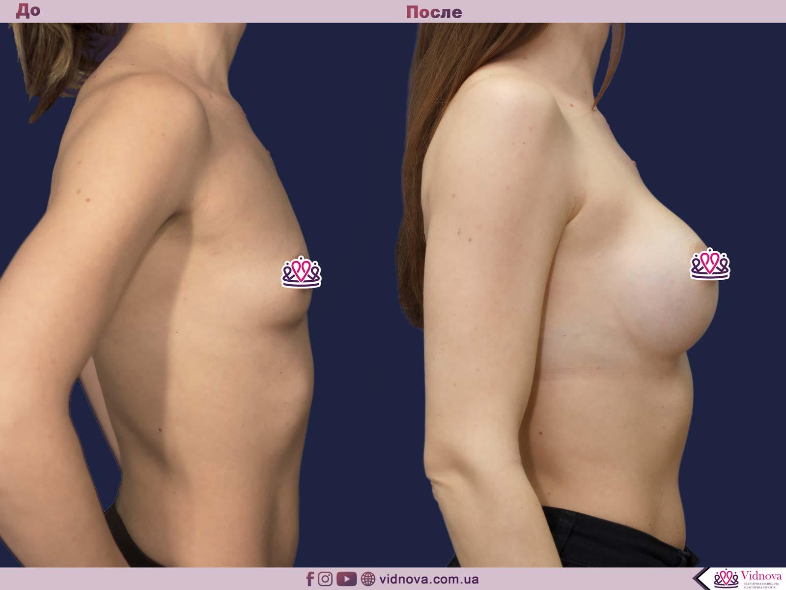 Пластика груди: результаты до и после - Пример №29-2 - Светлана Работенко