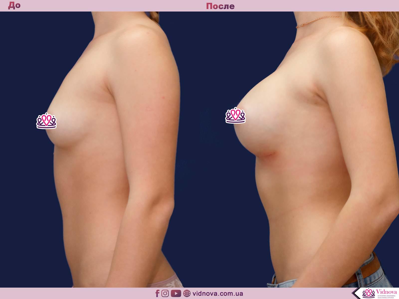 Пластика груди: результаты до и после - Пример №34-2 - Светлана Работенко