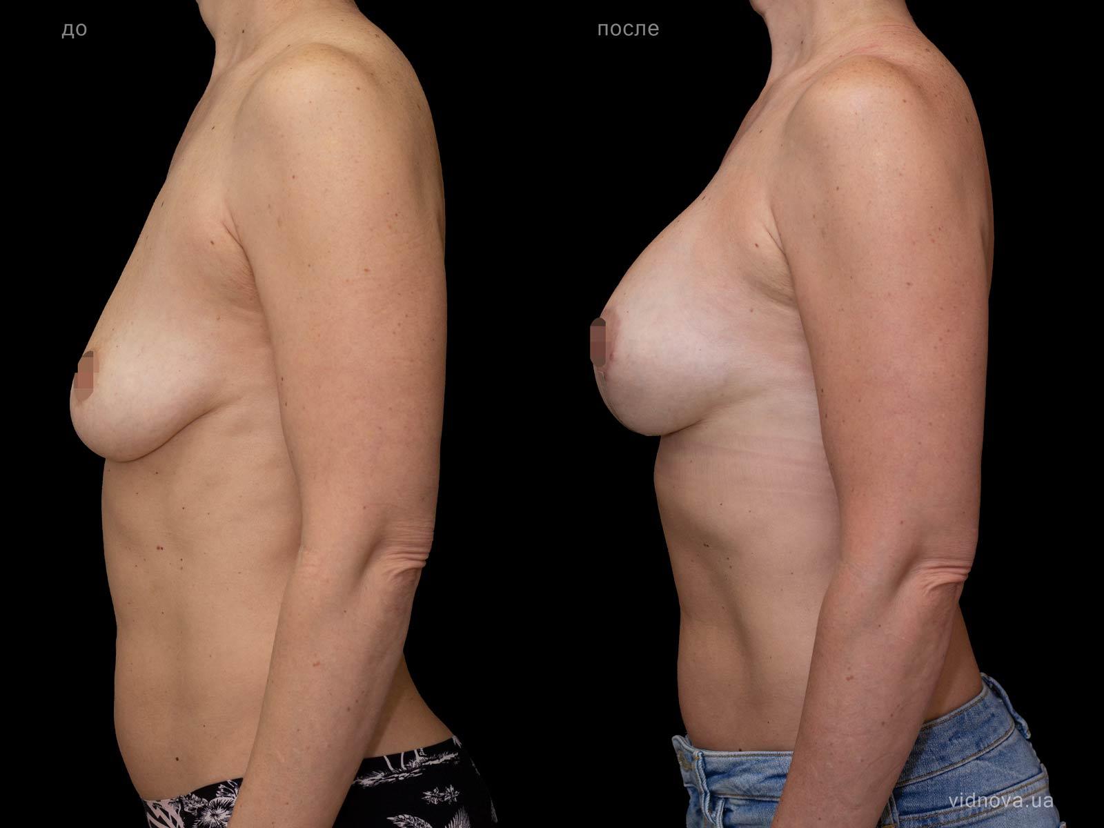 Пластика груди: результаты до и после - Пример №87-2 - Светлана Работенко