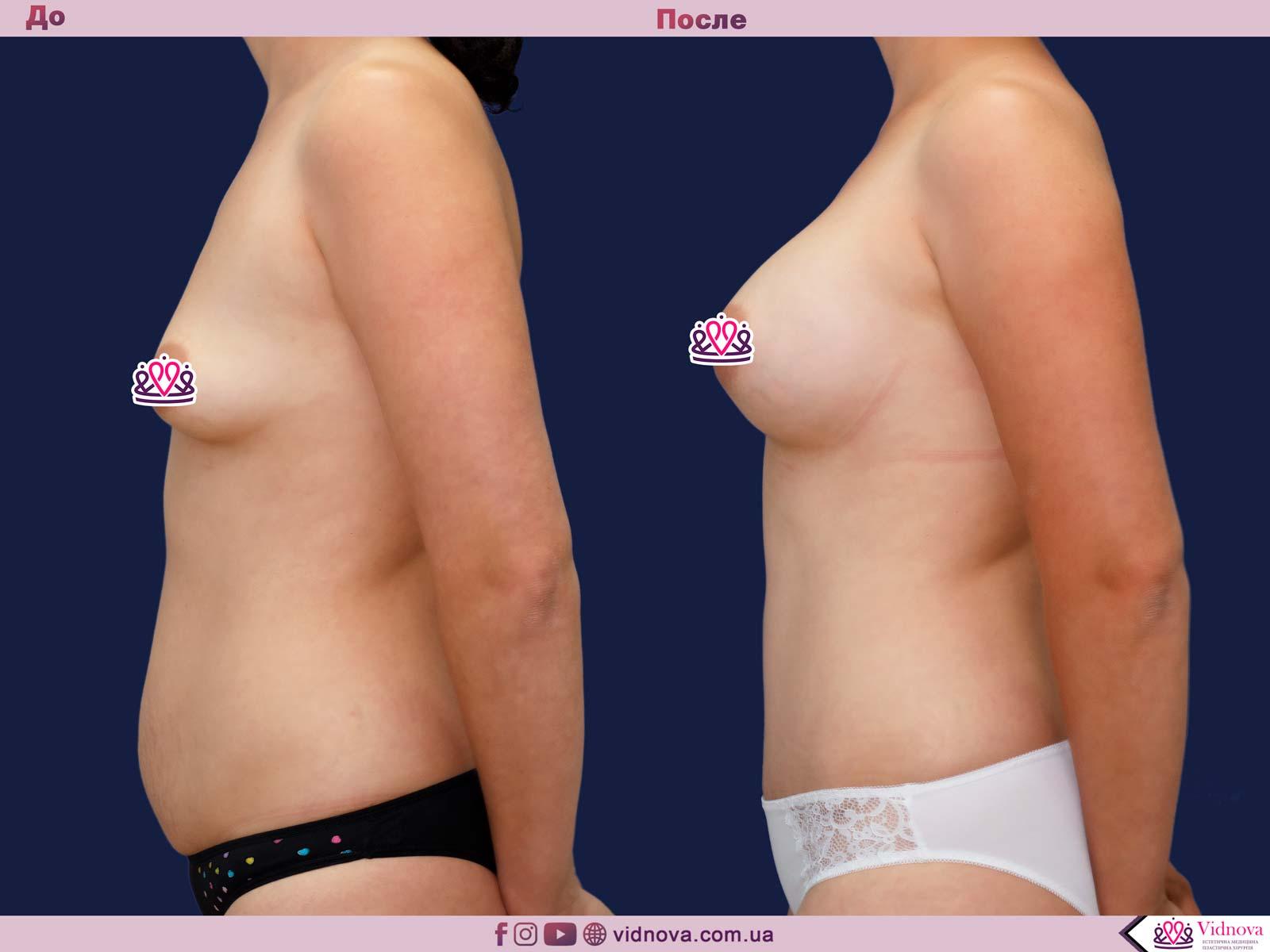 Пластика груди: результаты до и после - Пример №35-2 - Светлана Работенко