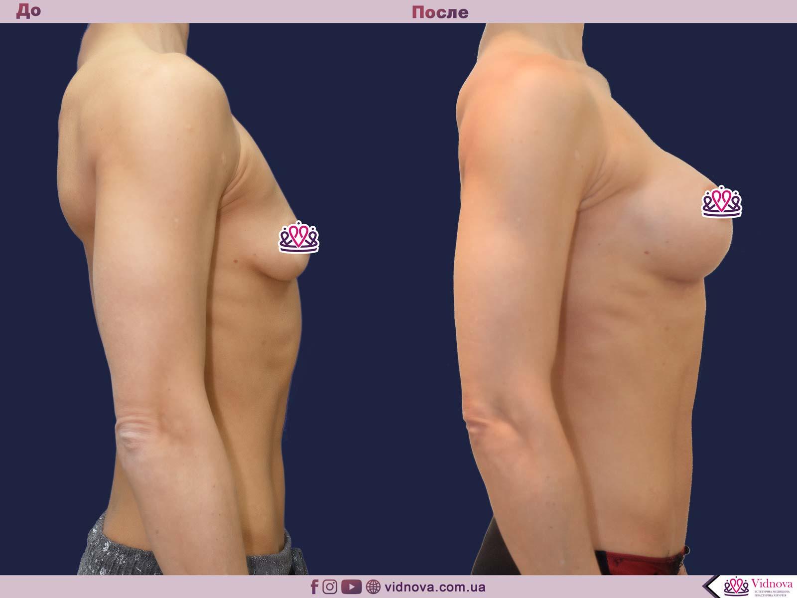 Пластика груди: результаты до и после - Пример №33-2 - Светлана Работенко