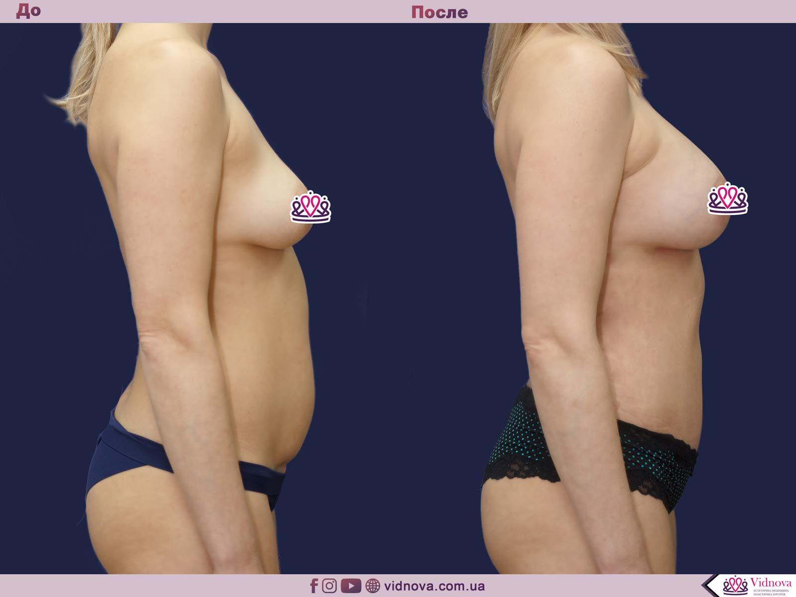 Пластика груди: результаты до и после - Пример №32-2 - Светлана Работенко