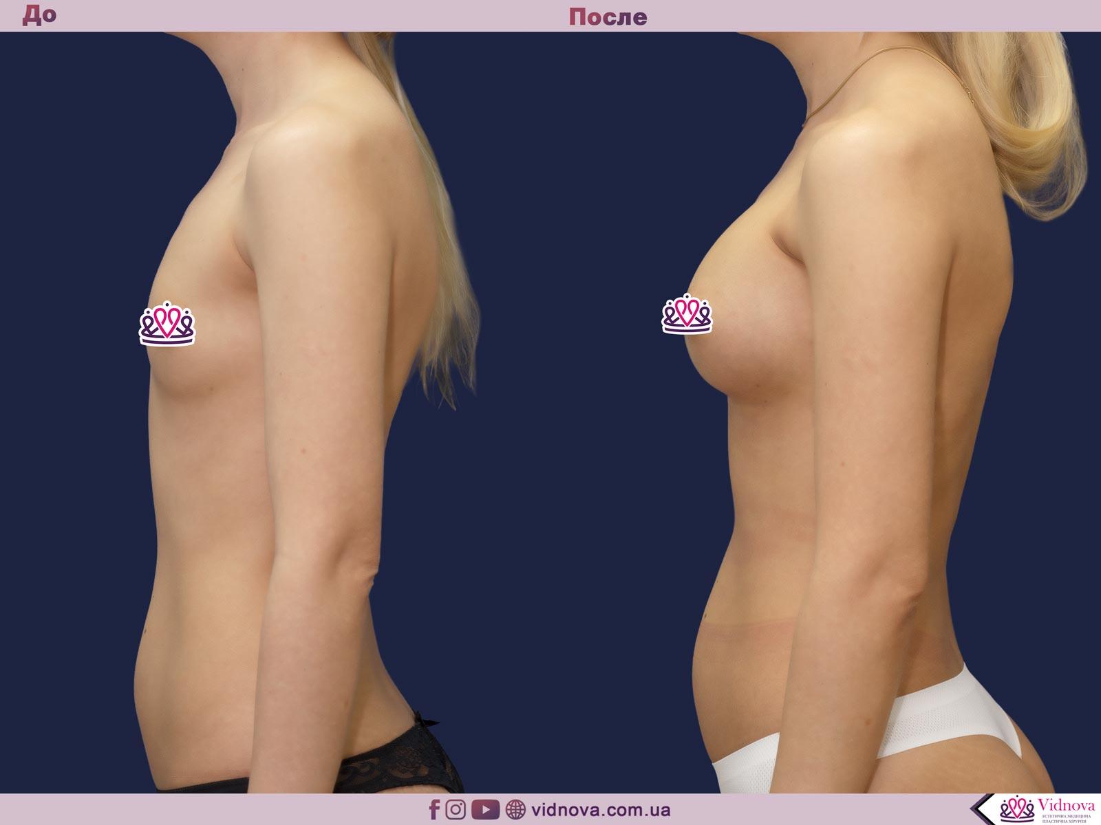 Пластика груди: результаты до и после - Пример №39-2 - Светлана Работенко