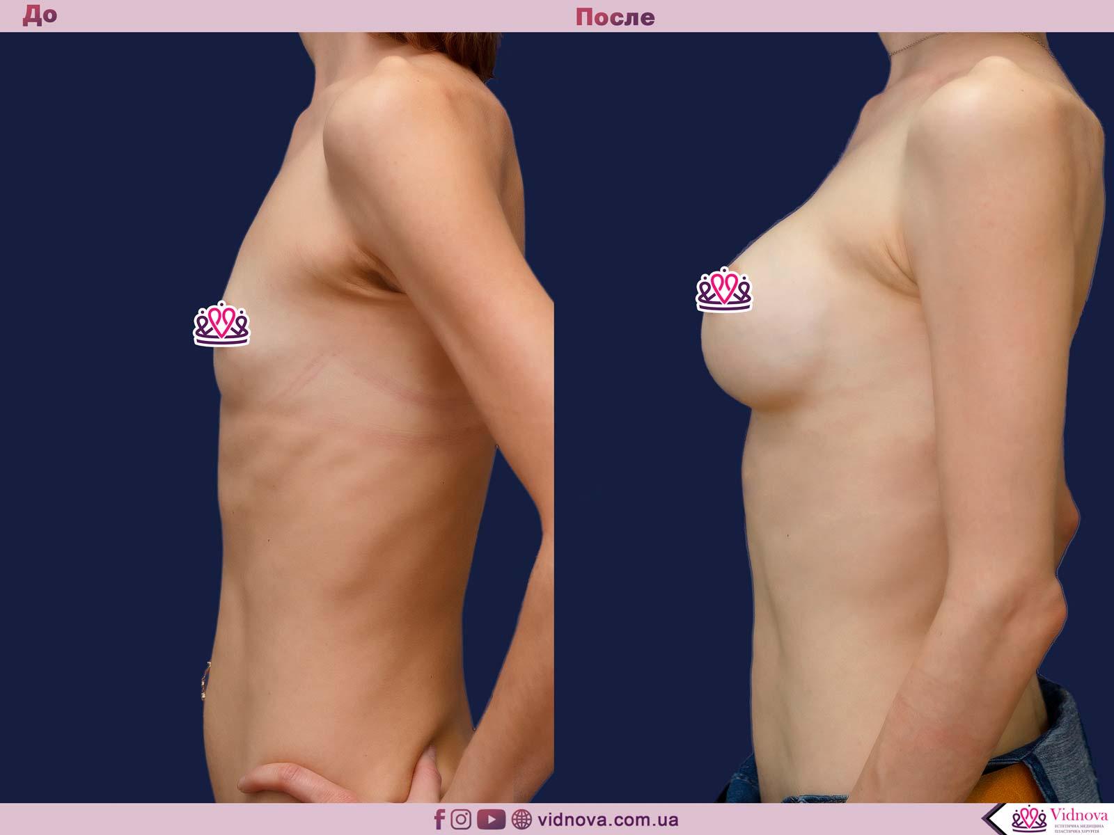 Пластика груди: результаты до и после - Пример №37-2 - Светлана Работенко