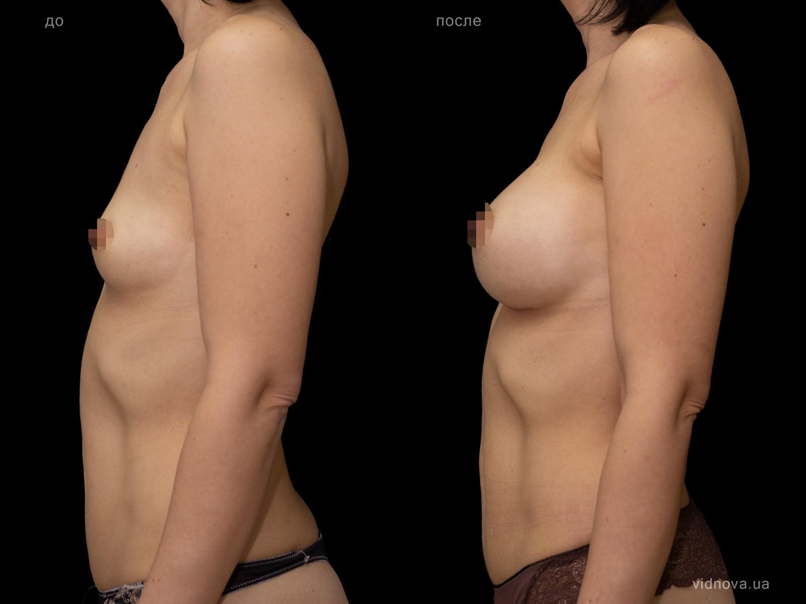 Пластика груди: результаты до и после - Пример №101-2 - Светлана Работенко