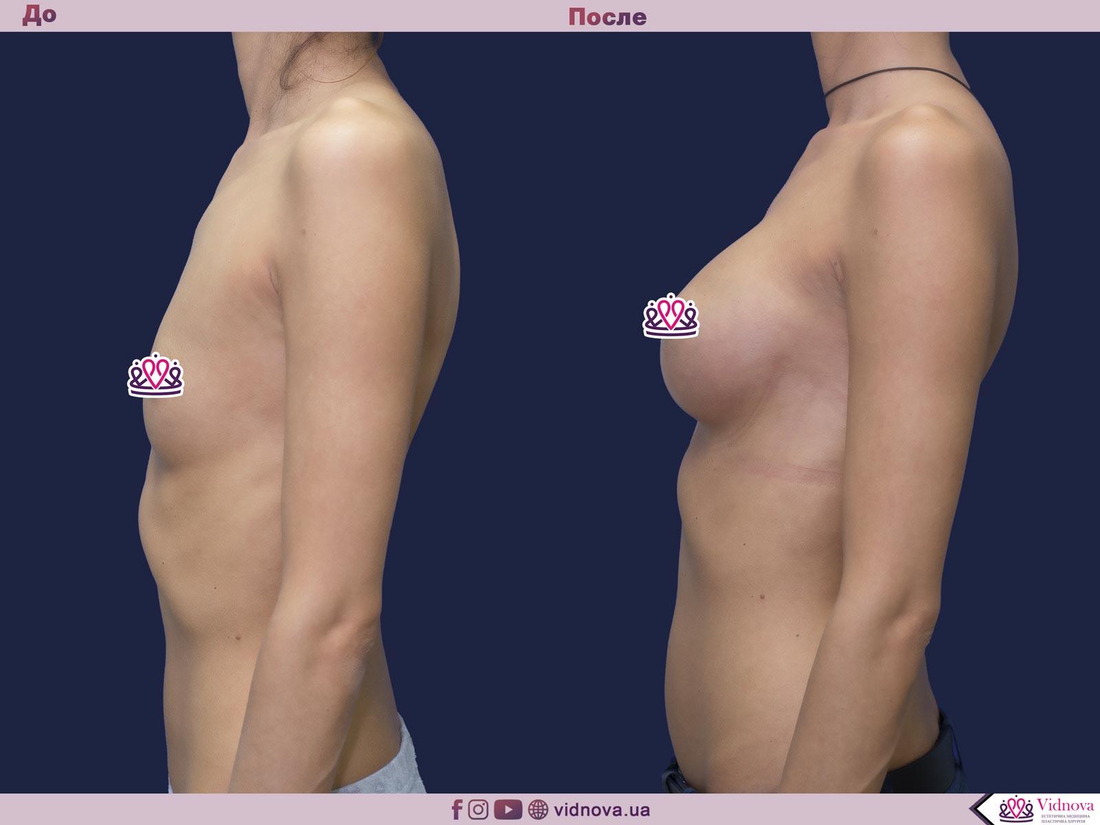 Пластика груди: результаты до и после - Пример №42-2 - Светлана Работенко