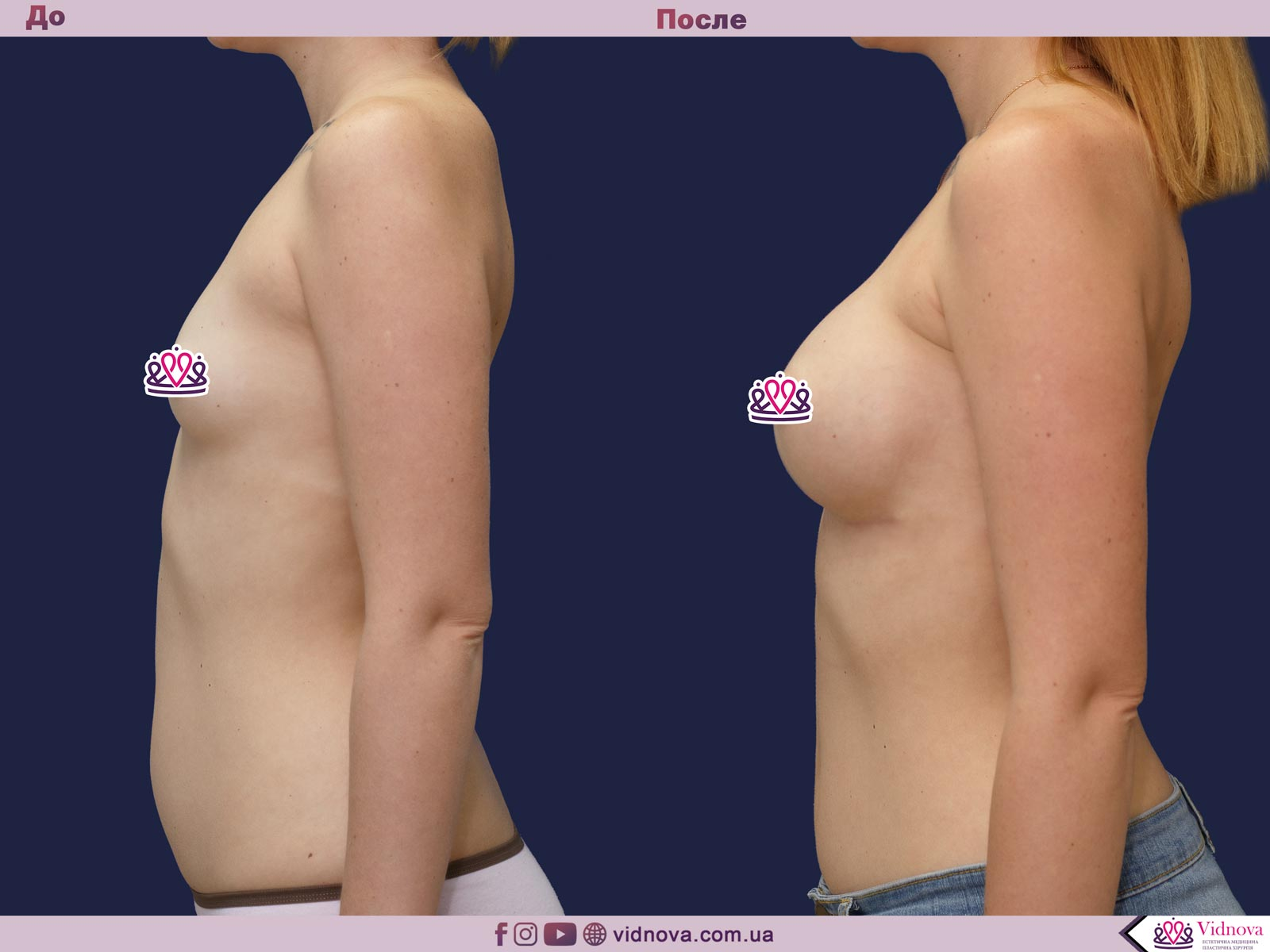 Пластика груди: результаты до и после - Пример №41-2 - Светлана Работенко