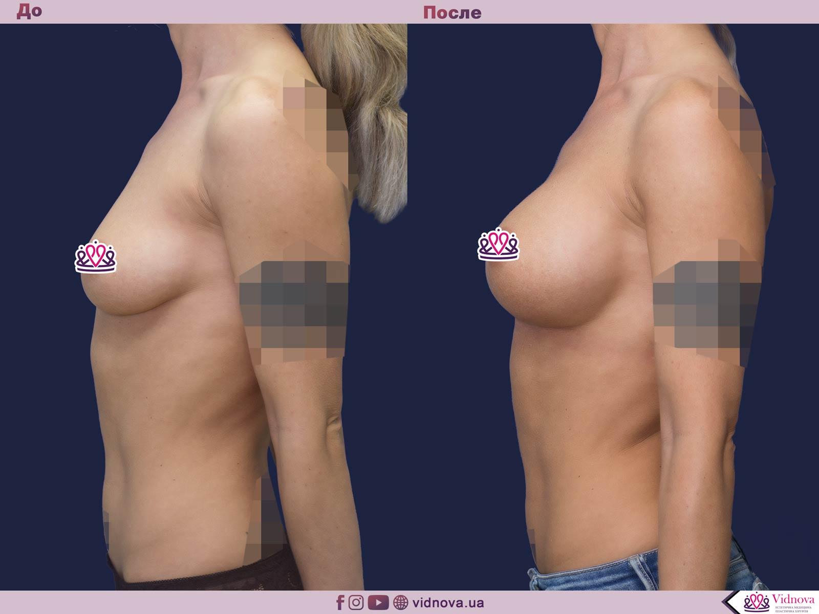 Пластика груди: результаты до и после - Пример №45-2 - Светлана Работенко