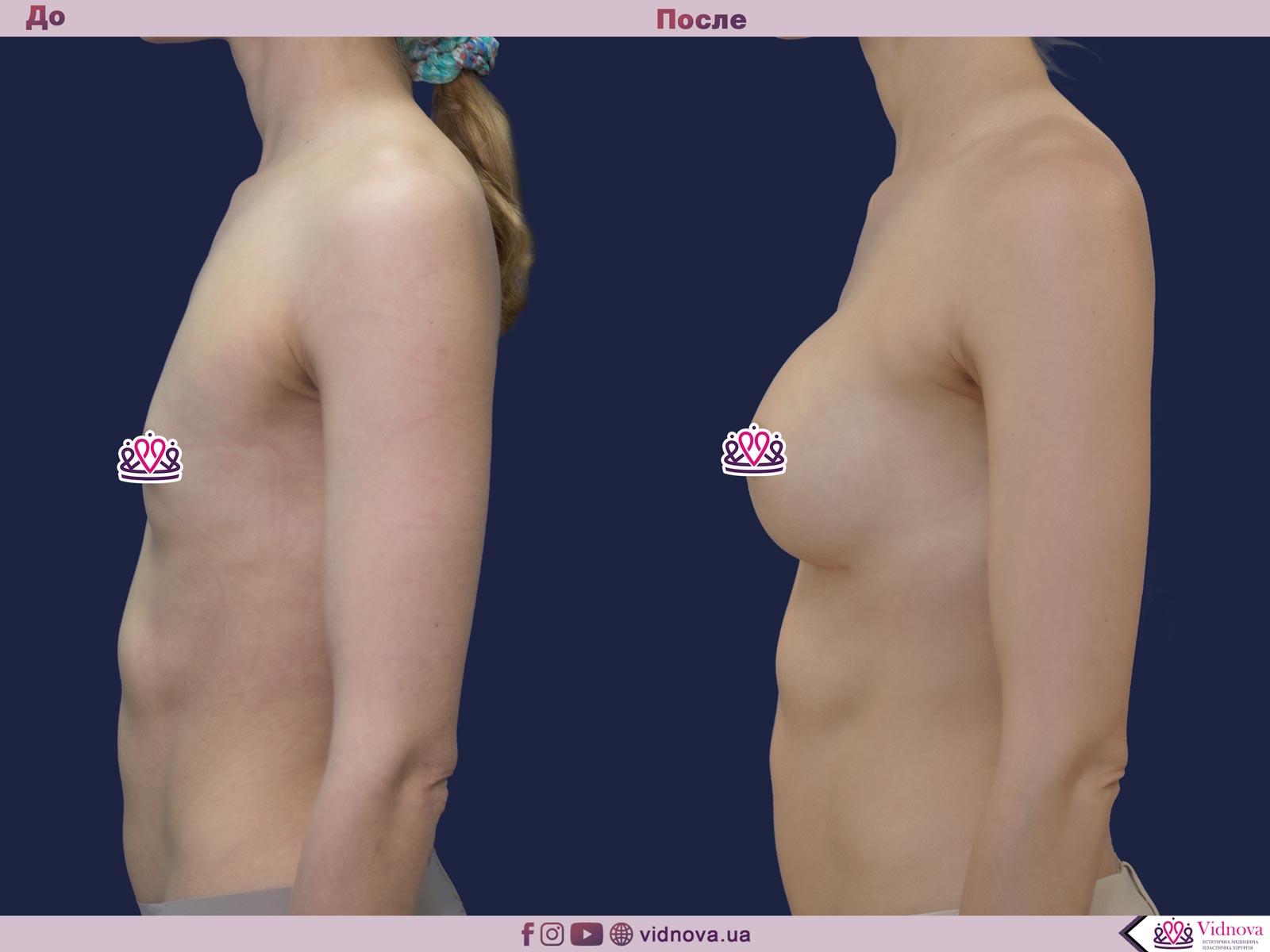 Пластика груди: результаты до и после - Пример №44-2 - Светлана Работенко