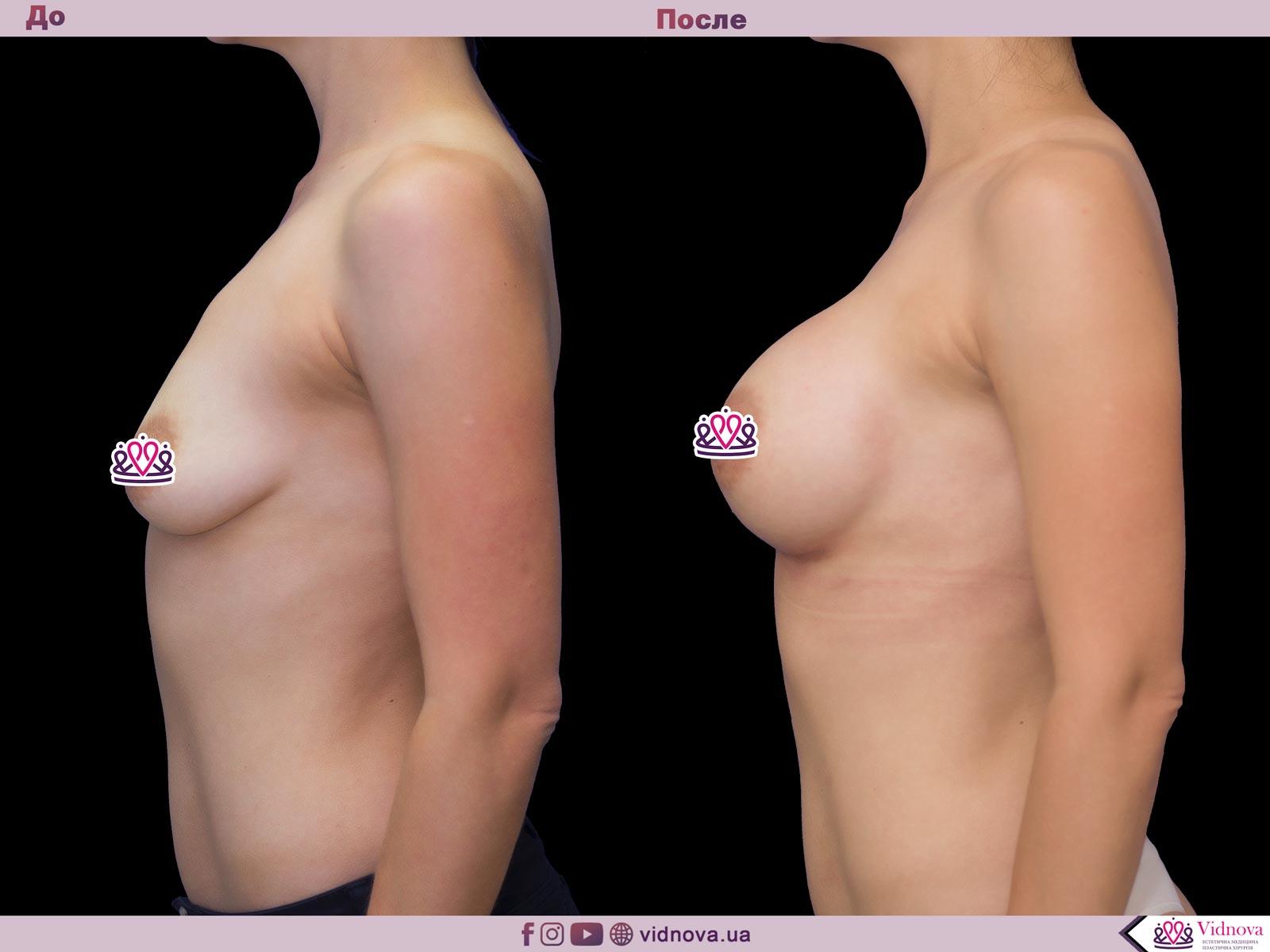 Пластика груди: результаты до и после - Пример №48-2 - Светлана Работенко