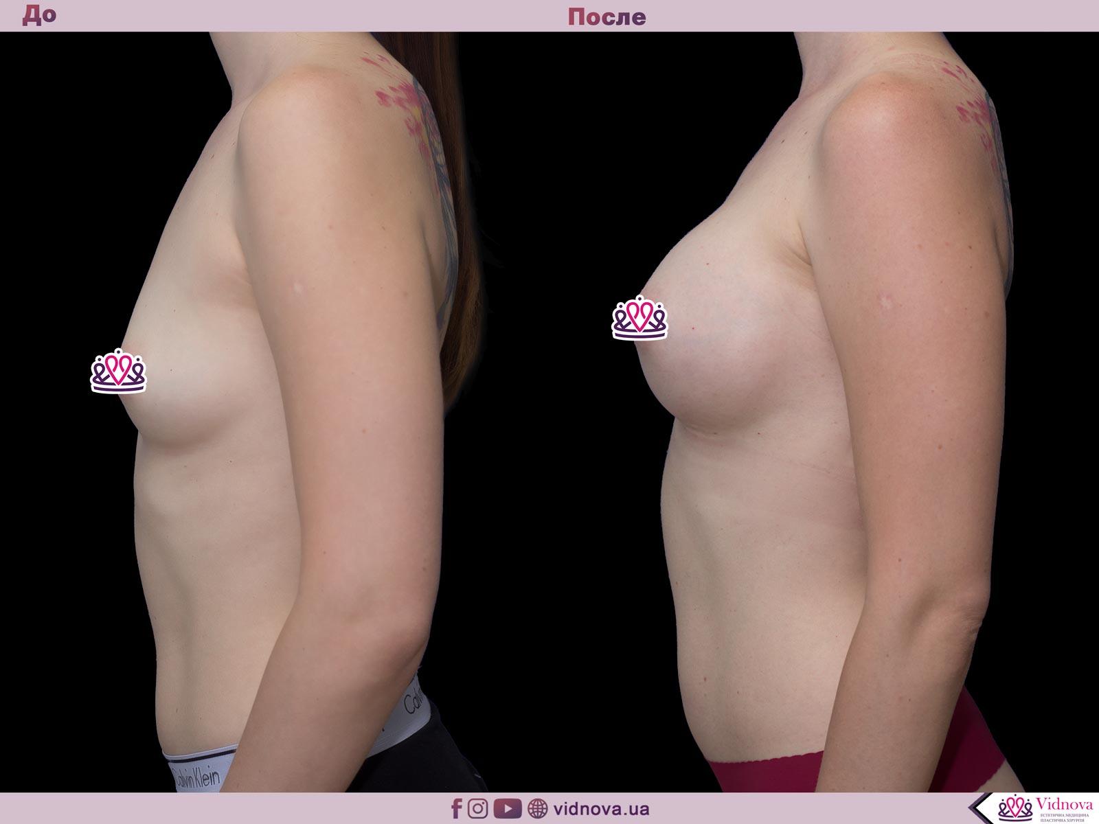 Пластика груди: результаты до и после - Пример №50-2 - Светлана Работенко