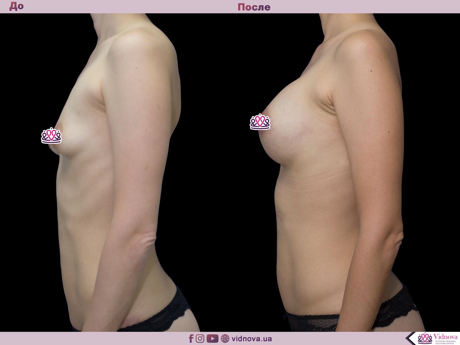 Пластика груди: результаты до и после - Пример №49-2 - Светлана Работенко
