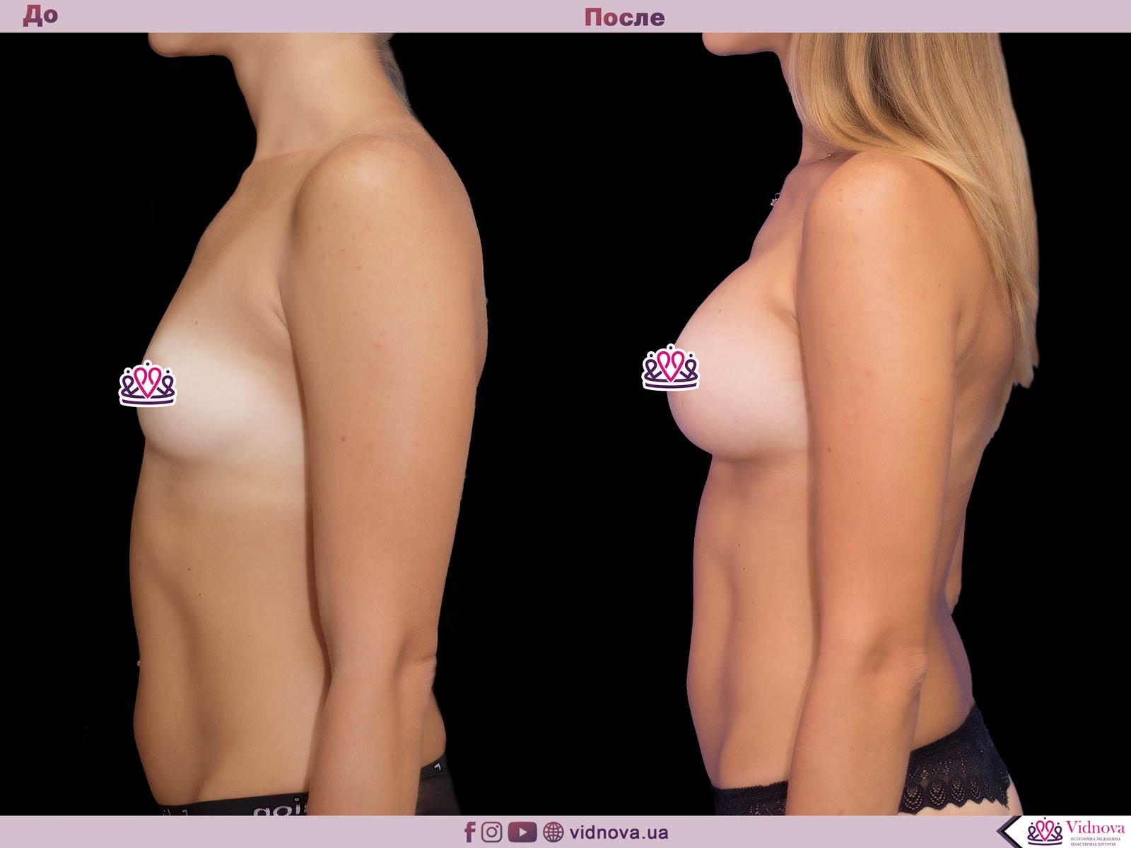 Пластика груди: результаты до и после - Пример №53-2 - Светлана Работенко