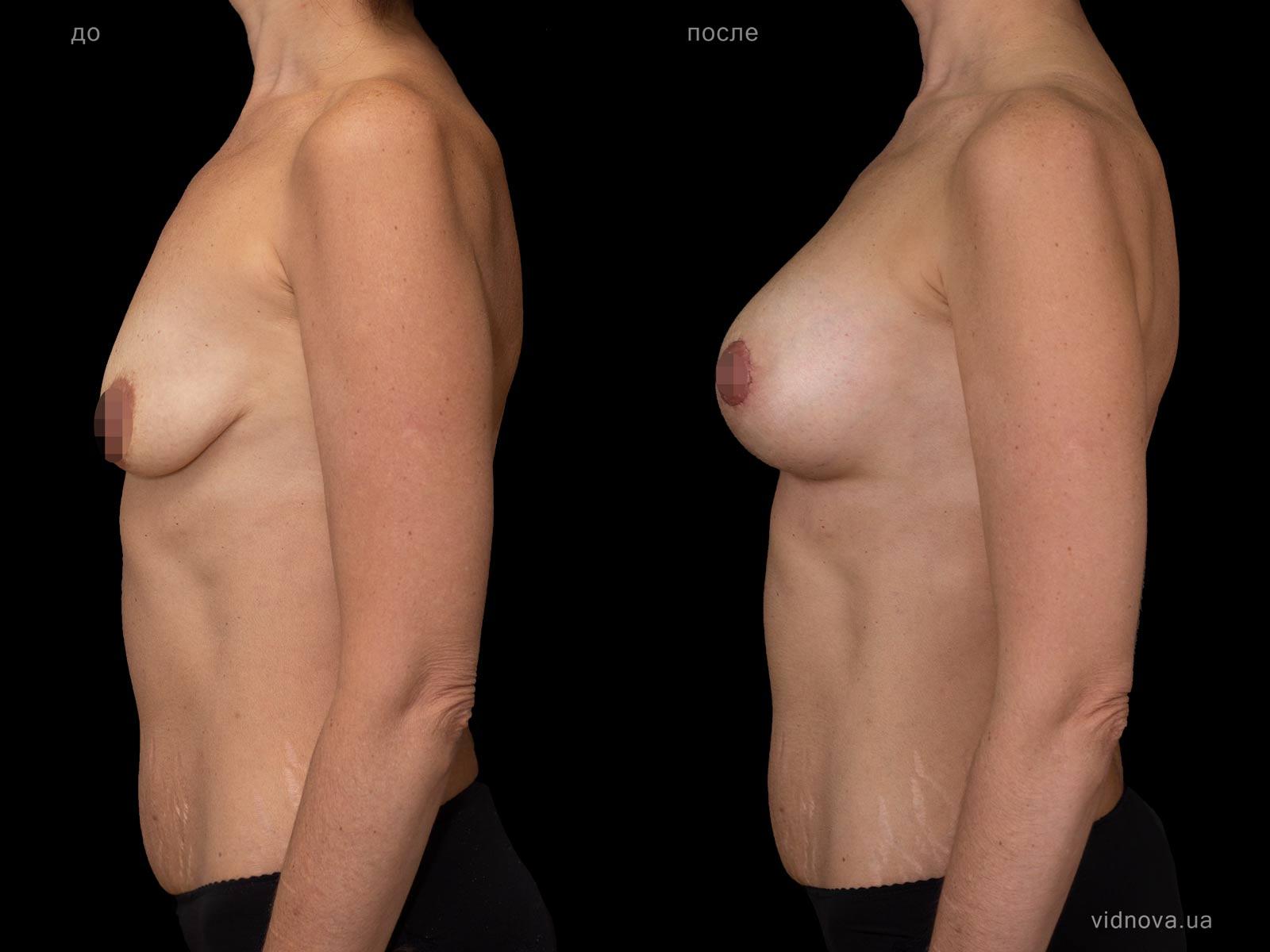 Пластика груди: результаты до и после - Пример №103-2 - Светлана Работенко